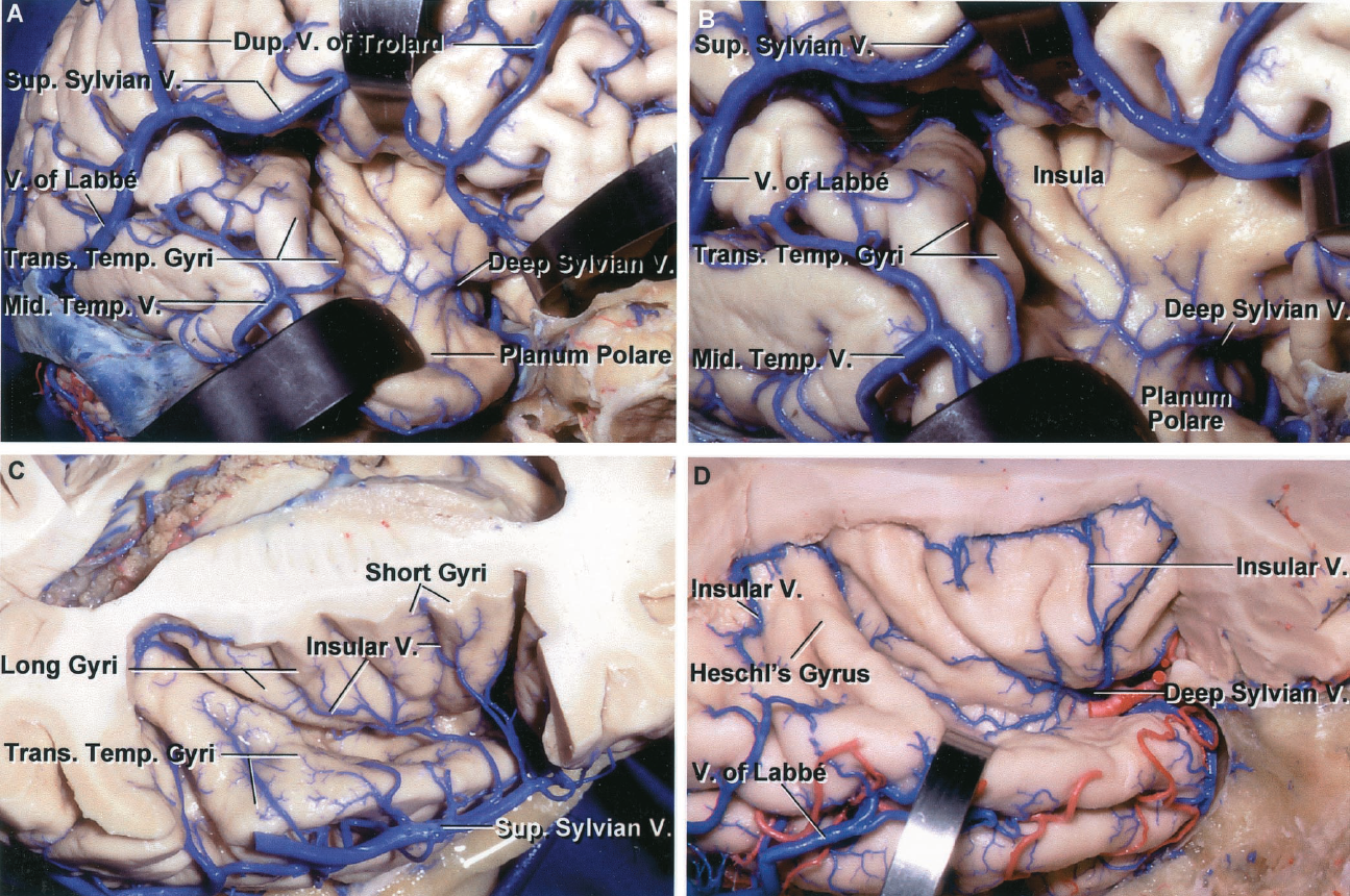 FIGURE 4.23. A, sylvian and insular veins. Lateral view of the sylvian fissure. The posterior two-thirds of the superficial sylvian vein is larger than the anterior third, which is very small. The large posterior segment of this superficial sylvian vein joins the vein of Labbé and the anterior end joins an anastomotic vein crossing the frontal lobe. Duplicate anastomotic veins fitting the criteria for a vein of Trolard connect the sagittal sinus to the sylvian veins: one crosses the frontal lobe and the other crosses the parietal lobe. The lip of the sylvian fissure has been retracted to expose a small deep sylvian vein, which crosses the insula and passes medially below the anterior perforated substance to join the basal vein. The lower retractor is on the planum polare, an area free of gyri on the upper surface of the temporal lobe. Further posteriorly on the upper surface of the temporal lobe are the transverse temporal gyri that form the planum temporale. B, enlarged view of another specimen. The lower opercular lip has been retracted to expose the deep sylvian veins passing around the lumen insula to course below the anterior perforated substance and join the anterior end of the basal vein. C, the frontoparietal operculum has been removed. The veins draining the opercular lips and insula pass predominantly to the large superficial sylvian vein rather than forming a large deep sylvian vein. D, another specimen showing the veins on the insula converging to form a deep sylvian vein that passes above the middle cerebral artery and below the anterior perforated substance to join the anterior end of the basal vein. The most anterior of the transverse temporal gyri is Heschl's gyrus. Dup., duplicate; Mid., middle; Sup., superior; Temp., temporal; Trans., transverse; V., vein.