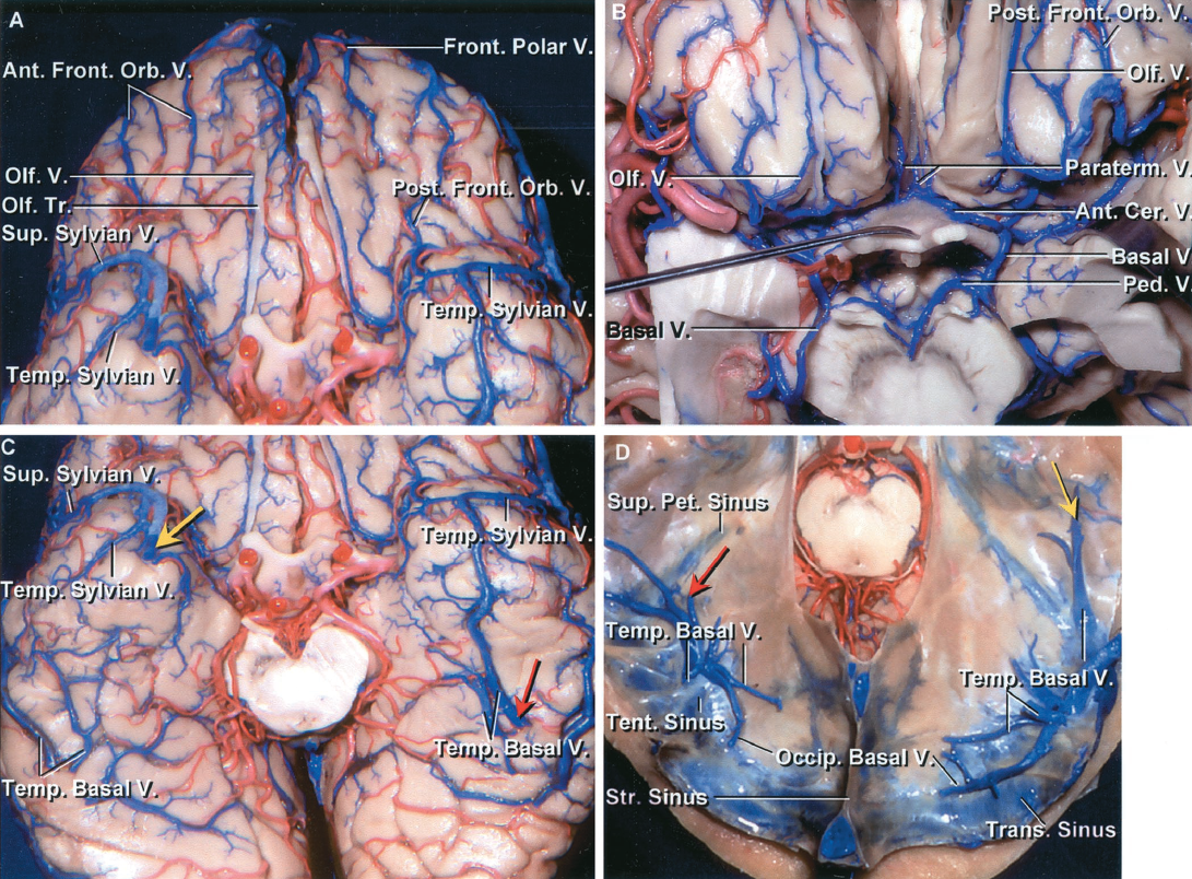 FIGURE 4.4. A-D. Veins of the basal surface. A, the basal surface of the frontal lobe is drained by the frontopolar, anterior and posterior fronto-orbital veins, and the olfactory veins. The anterior fronto-orbital veins empty into the anterior part of the superior sagittal sinus or its tributaries. The posterior fronto-orbital veins empty into the veins below the anterior perforated substance that converge on the anterior end of the basal vein. B, enlarged view. The optic chiasm has been reflected downward to expose the anterior cerebral veins passing above the optic chiasm and being joined by the paraterminal veins that course along the medial surface of the hemisphere below the genu of the corpus callosum. The olfactory, paraterminal, anterior cerebral, and posterior fronto-orbital veins converge on the anterior end of the basal vein. C, basal surface of the temporal lobe. The anterior part of the basal surface of the temporal lobe is drained by the temporosylvian veins that empty into the veins along the sylvian fissure. The right temporobasal veins empty into a tentorial sinus located just medial to the transverse sinus. The area normally drained by the left anterior and middle temporobasal veins is drained predominantly by a long trunk that passes along the long axis of the basal surface and empties at a tentorial sinus. The yellow and red arrows are on the terminal end of veins that empty into the right and left tentorial sinuses shown in D. D, superior view of the tentorial sinuses into which the temporobasal veins shown in C empty. The long vein on the left basal surface empties into the tributary of the left tentorial sinus shown by the red arrow. The temporobasal veins on the right side empty into the right tentorial sinus with multiple tributaries. The vein shown with the yellow arrow in C empties into the tributary of right tentorial sinus shown with a yellow arrow in D.