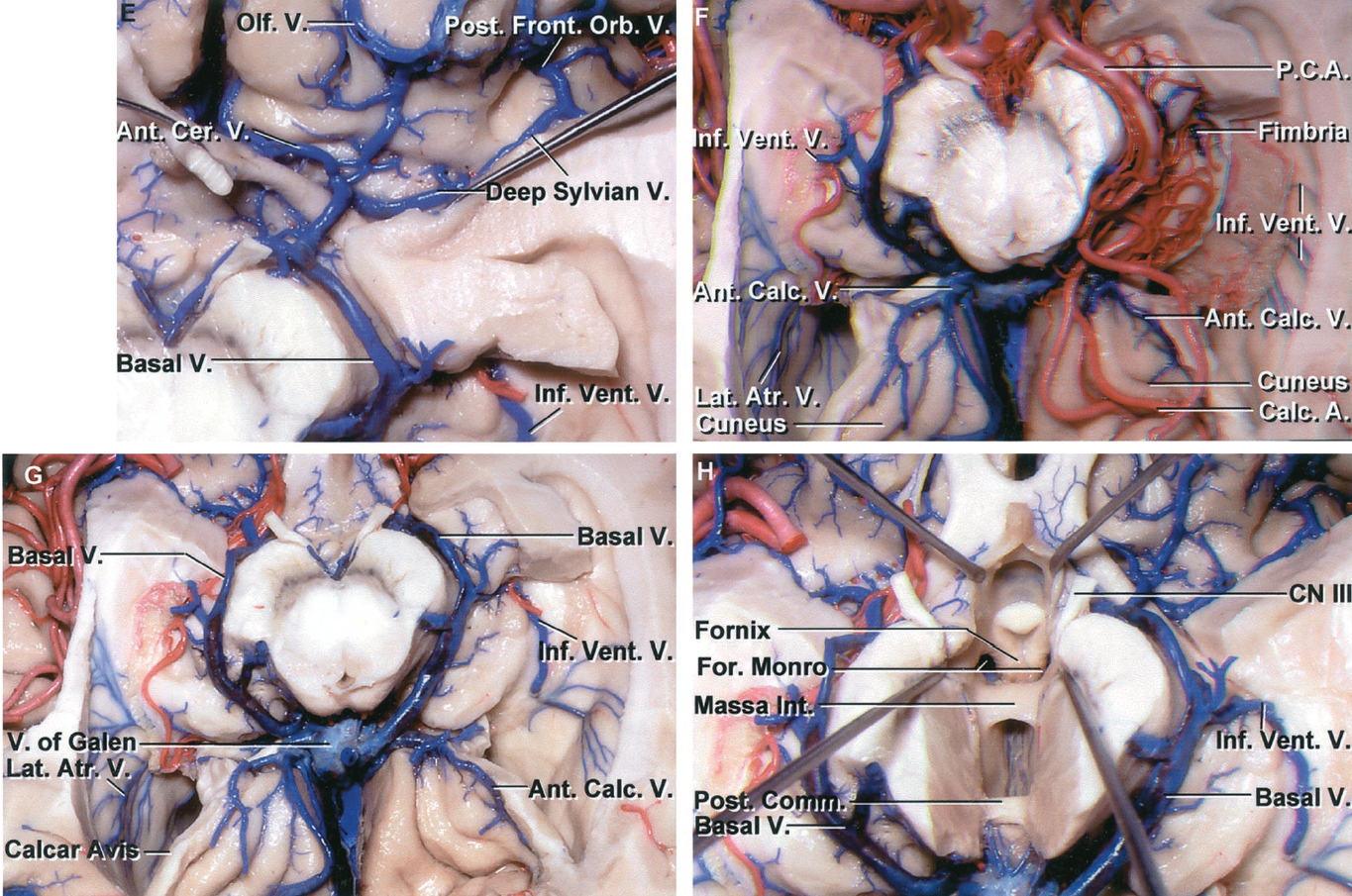 FIGURE 4.4. E-H. E, enlarged view of the area below the left anterior perforated substance. The olfactory, anterior cerebral, posterior fronto-orbital, and deep sylvian veins join to form the basal vein. The inferior ventricular vein joins the basal vein at the posterior edge of the cerebral peduncle. F, inferior view of the cerebral hemispheres with the parahippocampal gyri removed to expose the temporal horns and atria. The left fimbria and posterior cerebral artery have been preserved. The left inferior ventricular vein passes above the choroid plexus and through the choroidal fissure located between the fimbria and thalamus. The lateral atrial veins also pass through the choroidal fissure. The lower lip of the calcarine sulcus has been removed on both sides to expose the anterior calcarine veins and calcarine artery and the upper lip of the fissure formed by the cuneus. G, the left fimbria, posterior cerebral artery, and choroid plexus have been removed to expose the inferior ventricular vein crossing the roof of the temporal horn. The anterior calcarine veins, which empty into the vein of Galen, are exposed below the cuneus. H, the floor of the third ventricle has been removed to expose the fornix coursing above the foramen of Monro. The massa intermedia and posterior commissure are exposed. The basal veins pass around the midbrain to join the vein of Galen. Small hypothalamic veins join the anterior end of the basal vein. Ant., anterior; Atr., atrial; Calc., calcarine; Cer., cerebral; CN, cranial nerve; Comm., commissure; For., foramen; Front., frontal; Front.Orb., fronto orbital; Inf., inferior; Int., intermedia; Lat., lateral; Occip., occipital; Olf., olfactory; Paraterm., paraterminal; P.C.A., posterior cerebral artery; Ped., peduncular; Pet., petrosal; Post., posterior; Str., straight; Sup., superior; Temp., temporal; Tent., tentorial; Tr., tract; Trans., transverse; V., vein; Vent., ventral.