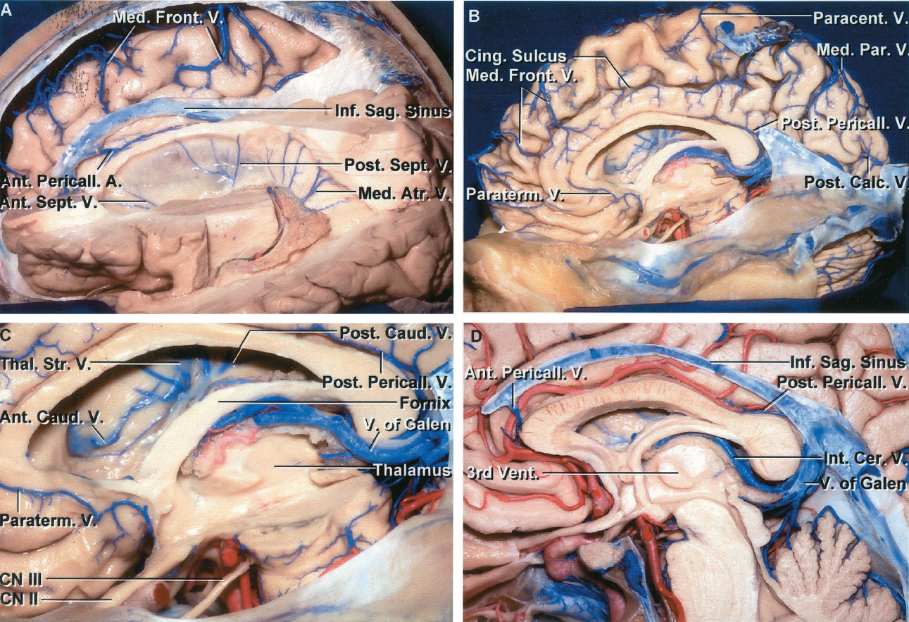 FIGURE 4.6. Veins of the medial surface. A, the upper part of the left cerebral hemisphere has been removed to expose the medial surface of the right hemisphere. An anterior pericallosal vein empties into the inferior sagittal sinus. The medial frontal veins draining the area above the cingulate sulcus empty into the superior sagittal sinus. The veins from the medial surface often join the veins from the lateral surface to form a common stem before emptying into the superior sagittal sinus. The veins from the part of the cingulate sulcus bordering the corpus callosum commonly empty into the paraterminal veins or the pericallosal veins. The anterior and posterior septal and medial atrial veins cross the medial wall of the frontal horn, body, and atrium. The anterior pericallosal vein empties into the anterior end of the inferior sagittal sinus. B, the remainder of the left hemisphere has been removed. The medial frontal and parietal veins draining the outer strip of the medial surface empty into the superior sagittal sinus. The veins draining the part of the cingulate sulcus facing the corpus callosum empty into the anterior and posterior pericallosal, paraterminal, and great veins. The posterior calcarine vein drains the posterior part of the calcarine sulcus and commonly empties into the veins on the lateral surface. C, enlarged view. The anterior and posterior caudate and thalamostriate veins in the lateral wall of the frontal horn and body pass through the choroidal fissure between the fornix and thalamus to empty into the internal cerebral veins. The paraterminal vein courses downward in front of the lamina terminalis to empty into the anterior cerebral vein. A posterior pericallosal (splenial) vein passes around the splenium of the corpus callosum and empties into the vein of Galen. D, enlarged view of the inferior sagittal sinus coursing in the lower edge of the falx. An anterior pericallosal vein empties into the anterior end of the inferior sagittal sinus. A small posterior pericallosal vein empties into the vein of Galen. A., artery; Ant., anterior; Atr., atrial; Calc., calcarine; Caud., caudal; Cer., cerebral; Cing., cingulate; CN, cranial nerve; Front., frontal; Inf., inferior; Int., internal; Med., medial; Par., parietal; Paracent., paracentral; Paraterm., paraterminal; Pericall., pericallosal; Pet., petrosal; Post., posterior; Sag., sagittal; Sept., septal; Thal. Str., thalamostriate; V., vein; Vent., ventricle.