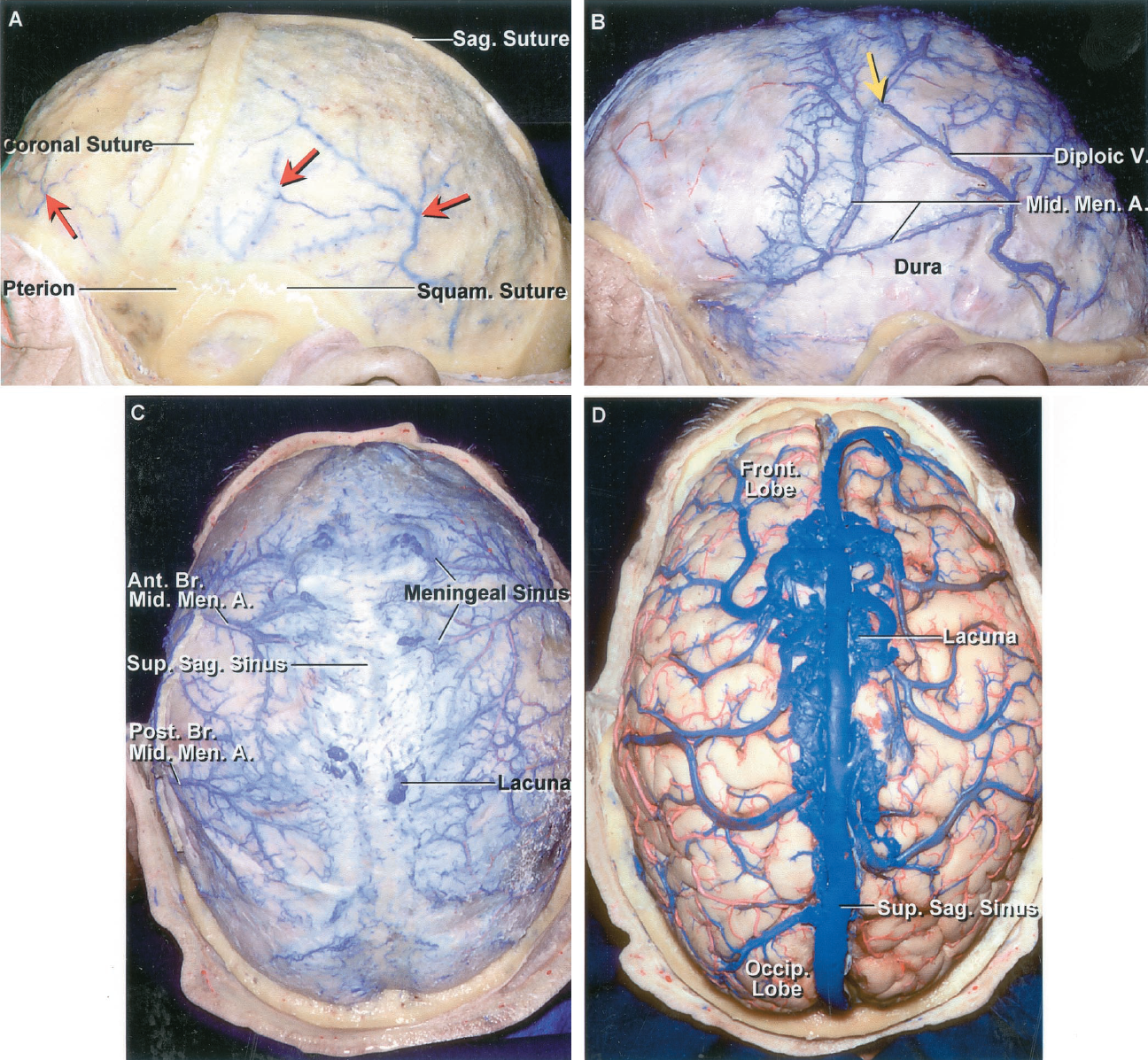 FIGURE 4.8. A, the outer table of the cranium has been removed, while preserving the sutures, to expose the diploic veins (red arrows) coursing between the inner and outer table. B, the inner table has been removed to expose the meningeal sinuses coursing along the middle meningeal artery, while preserving the large posterior diploic vein in the bone. The upper end of the diploic vein joins the venous sinuses around the middle meningeal artery at the yellow arrow. C, superior view. The dura covering the cerebral hemispheres contains a plexus of small meningeal sinus veins that follow the branches of the meningeal arteries. The largest meningeal sinuses course along the anterior and posterior branches of the middle meningeal artery and extend up to the superior sagittal sinus and the region of the venous lacunae. D, the dura has been opened and the venous lacunae preserved. The veins from the posterior part of the hemisphere are directed forward. A., artery; Ant., anterior; Br., branch; Men., meningeal; Mid., middle; Occip., occipital; Post., posterior; Sag., sagittal; Squam., squamosal; Sup., superior; V., vein.