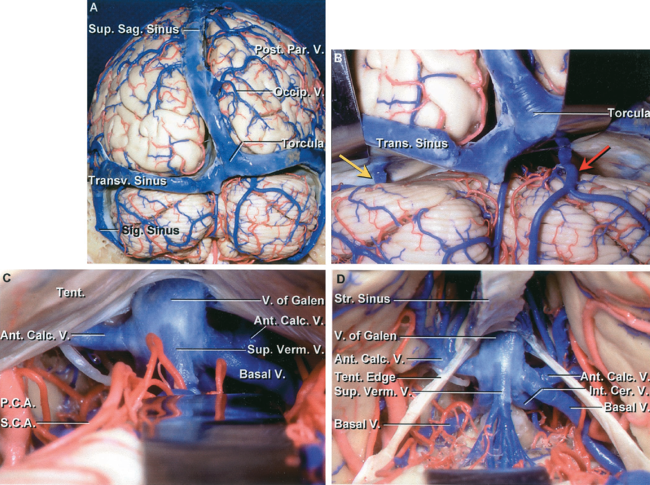 FIGURE 4.9. Posterior view of the cerebral and cerebellar hemispheres. A, the superior sagittal sinus is connected through the torcular herophili with the transverse sinuses. The right transverse sinus is slightly larger than the left. The veins arising along the posterior part of the hemisphere are directed forward and join the superior sagittal sinus well above the torcular herophili, leaving a void along the medial occipital lobe where there are no bridging veins emptying into the sinus. B, the tentorium has been elevated to show the veins from the cerebellum forming bridging veins that enter the sinuses in the lower margin of the tentorium. On the left side, a large vein (yellow arrow) passes from the superior surface of the cerebellar hemisphere to enter a tentorial sinus. On the right side, a large bridging vein from the suboccipital cerebellar surface (red arrow) turns forward on the superior surface and empties into a tentorial sinus in front of the torcular herophili. C, view below the tentorium. The vein of Galen empties into the straight sinus. A large superior vermian vein empties into the vein of Galen. The right basal and the right and left anterior calcarine veins are exposed. The left basal vein is hidden in front of the left superior cerebellar artery. D, the tentorium has been removed, while preserving the straight sinus and the tentorial edge. The vein of Galen and its tributaries are exposed in the quadrigeminal cistern. Both basal veins are exposed. Large anterior calcarine veins drain the calcarine sulcus and adjacent part of the atrium. The branches of the posterior cerebral artery course in the upper part of the quadrigeminal cistern and the branches of the superior cerebellar artery course in the lower part. Ant., anterior; Calc., calcarine; Cer., cerebral; Int., internal; Occip., occipital; Par., parietal; P.C.A., posterior cerebral artery; Post., posterior; Sag., sagittal; S.C.A., superior cerebellar artery; Sig., sigmoid; Str., straight; Sup., superior; Tent., tentorium, tentorial; Trans., Transv., transverse; V., vein; Verm., vermian.
