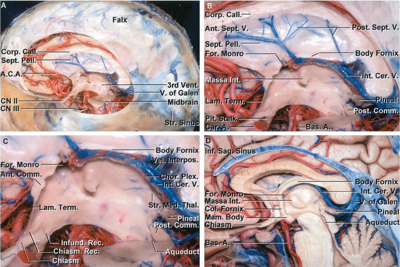 FIGURE 5.11. A-D. Midsagittal views of the third ventricle. A, the third ventricle sits in the center of the cranium below the corpus callosum, body of the lateral ventricles, and septum pellucidum, above the midbrain and interpeduncular fossa, anterior to the quadrigeminal cistern and vein of Galen, and posterior to the anterior cerebral arteries. The interhemispheric fissure, along the side of the falx, offers one avenue to the third ventricle. The posterior part of the third ventricle can also be approached along the junction of the falx and tentorium, adjacent the straight sinus. B, enlarged view. The septum pellucidum separates the bodies and frontal horns of the lateral ventricles and is crossed by anterior and posterior septal veins. The anterior cerebral artery ascends along the front wall of the third ventricle, the basilar bifurcation is positioned below the floor, and the vein of Galen blocks access to the posterior wall. C, enlarged view of the third ventricle. The anterior wall of the third ventricle is formed by the lamina terminalis and anterior commissure and blends above into the rostrum of the corpus callosum. The roof is formed by the body of the fornix and the velum interpositum through which the internal cerebral veins and medial posterior choroidal arteries course. The posterior wall, formed by the pineal and habenular and posterior commissures, is located anterior to the quadrigeminal cistern and the venous complex created by numerous veins converging on the vein of Galen. The floor is formed, from anterior to posterior, by the optic chiasm, tuber cinereum above the pituitary stalk, mamillary bodies, and upper midbrain. The section extends to the lateral side of the mamillary bodies. The velum interpositum is the space within the roof of the third ventricle along which the internal cerebral veins and medial posterior choroidal arteries pass. The body of the fornix is located above the velum interpositum. The upper wall of the velum interpositu