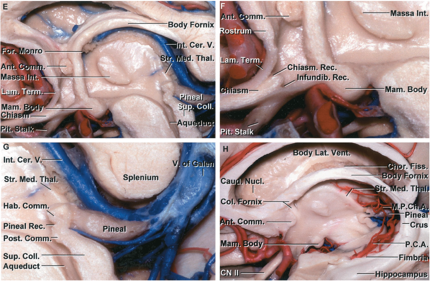 FIGURE 5.11. E-H. E, enlarged view. The anterior wall is made up of the lamina terminalis and the anterior commissure. The optic chiasm, mamillary bodies, and midbrain are in the floor. F, enlarged view. The chiasmatic recess is located above the optic chiasm and behind the lamina terminalis. The infundibular recess is located below and behind the optic chiasm. The lamina terminalis blends into the rostrum of the corpus callosum. The anterior commissure is positioned between the rostrum of the corpus callosum and the columns of the fornix. The thalamus and hypothalamus form the lateral wall of the third ventricle. G, enlarged view of the posterior part of the third ventricle. The posterior wall of the third ventricle is formed by the aqueduct, pineal, and habenular and posterior commissures. The pineal recess extends into the base of the pineal in the interval between the habenular and posterior commissures. H, lateral view of the third ventricle with the hippocampus and fornix preserved. The body of the fornix forms the roof of the third ventricle. The velum interpositum, through which the internal cerebral veins course, is located between the body of the fornix and the striae medullaris thalami. The quadrigeminal cistern and pineal region are located anteromedial to the crus of the fornix, and the ambient cistern and posterior cerebral artery are located medial to the temporal horn and the fimbria. Opening the choroidal fissure adjacent to the body of the fornix exposes the third ventricle. The medial posterior choroidal arteries turn forward beside the pineal to reach the velum interpositum. A., artery; A.C.A., anterior cerebral artery; Ant., anterior; Bas., basilar; Call., callosum; Car., carotid; Caud., caudate; Cer., cerebral; Chiasm., chiasmatic; Chor., choroid; CN, cranial nerve; Col., column; Coll., colliculus; Comm., commissure; Corp., corpus; For., foramen; Hab., habenular; Infund., infundibular; Int., intermedia, internal; Interpos., interpositum; Lam., 