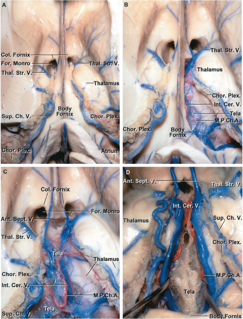 FIGURE 5.12. A-D. Roof of the third ventricle. Superior views. A, the upper part of the hemispheres has been removed to expose the frontal horn and body of the lateral ventricle.] The choroid plexus is attached along the choroidal fissure located between the body of the fornix and the thalamus. The superior choroidal veins course along the choroid plexus. The thalamostriate veins pass through the posterior margins of the foramen of Monro. The columns of the fornix pass anterior and superior to the foramen of Monro. The body of the fornix forms the upper part of the roof of the third ventricle. B, the right lateral edge of the fornix has been removed to expose the upper layer of tela choroidea that spans the interval below the body of the fornix and forms the upper wall of the velum interpositum in the roof of the third ventricle. The velum is positioned between an upper layer of tela attached to the lower surface of the body of the fornix and a lower layer of tela attached below the internal cerebral veins to the striae medullaris thalami. The internal cerebral veins and medial posterior choroidal arteries course in the velum interpositum. C, the body of the fornix has been folded backward. The upper layer of tela that rests against the lower surface of the body of the fornix has been preserved. The tela is a thin, arachnoid-like membrane, through which the internal cerebral veins and the medial posterior choroidal arteries can be seen. The anterior septal veins pass above the foramen of Monro. D,the upper layer of tela has been removed to expose the internal cerebral veins and medial posterior choroidal arteries. The internal cerebral veins have been retracted laterally. The anterior septal veins course along the septum and join the internal cerebral veins nearthe foramen of Monro.