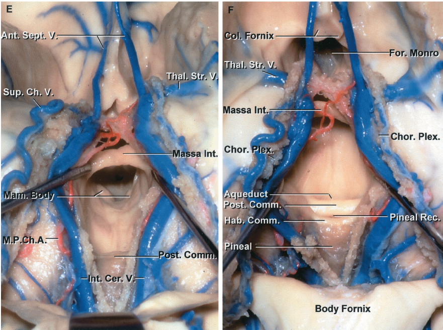 FIGURE 5.12. E-F. E, the tela has been opened to expose the massa intermedia, mamillary bodies, and posterior commissure. F, the exposure has been directed to the posterior part of the third ventricle. The aqueduct is positioned below the posterior and habenular commissures. The pineal recess extends posteriorly between the habenular and posterior commissures into the base of the pineal. Ant., anterior; Cer., cerebral; Ch., choroidal; Chor., choroid; Col., column; Comm., commissure; For., foramen; Hab., habenular; Int., intermedia, internal; Mam., mamillary; M.P.Ch.A., medial posterior choroidal artery; Plex., plexus; Post., posterior; Rec., recess; Sept., septal; Sup., superior; Thal.Str., thalamostriate; V., vein.