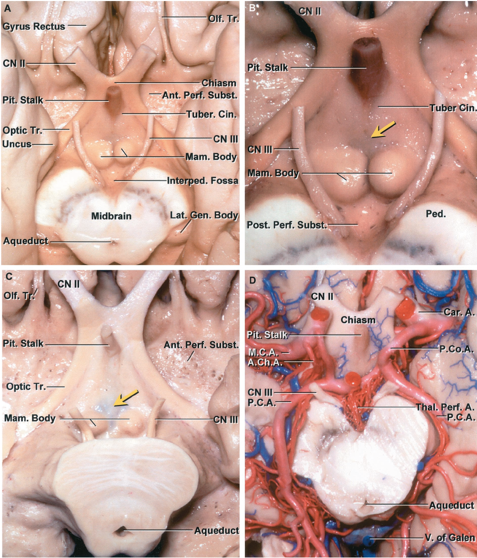 FIGURE 5.13. A-D. Floor and roof of the third ventricle. A, the floor of the third ventricle is located medial to the uncus and anterior perforated substance and above the midbrain. From anterior to posterior, the floor includes the lower margin of the optic chiasm, the pituitary stalk surrounded by the tuber cinereum, mamillary bodies, and the midbrain. The interpeduncular fossa is located below the posterior part of the floor. The anterior part of the optic tract extends along the lateral margin of the floor, but further posteriorly, the tracts deviate laterally away from the floor to pass around the upper margin of the cerebral peduncle. B, enlarged view. The tuber cinereum is situated around the pituitary stalk. The infundibular recess extends into the base of the stalk. A third ventriculostomy is commonly performed by opening through the thin area (yellow arrow) in the floor just in front of the mamillary bodies. The oculomotor nerves arise behind the mamillary bodies below the posterior part of the floor of the third ventricle. C, another specimen showing the thin area in front of the mamillary bodies (yellow arrow) through which a third ventriculostomy is completed. The anterior perforated substance and optic tracts are positioned lateral to the anterior part of the floor of the third ventricle. The mamillary bodies and upper midbrain are positioned below the posterior part of the floor. D, view of another third ventricle from below with the vascular structure preserved. The internal carotid, posterior communicating, anterior choroidal, and posterior cerebral arteries all give rise to branches that reach the walls of the lateral and third ventricles. The thalamoperforating branches of the posterior cerebral artery supply some of the posterior part of the floor of the third ventricle.
