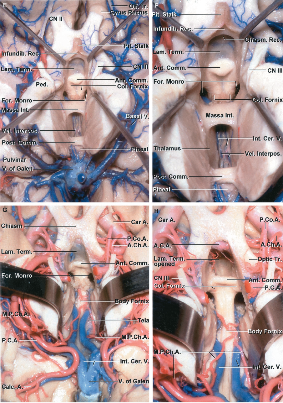 FIGURE 5.13. E-H. E, inferior view with the floor of the third ventricle removed to expose the roof. The pituitary stalk has been reflected forward to expose the ventricular side of the infundibular recess and lamina terminalis. The lamina terminalis slopes upward from the upper edge of the chiasm to the area in front of the anterior commissure where it blends into the rostrum of the corpus callosum. The columns of the fornix cross above and anterior to the foramen of Monro and descend toward the mamillary bodies. The massa intermedia crosses the midportion of the third ventricle. The velum interpositum, in which the internal cerebral veins and medial posterior choroidal arteries course, is positioned between the thalami in the roof of the third ventricle. The posterior commissure is exposed below the pineal gland. The vein of Galen, into which the basal veins empty, is located just behind the third ventricle. F, enlarged view. The infundibular recess is located below the optic chiasm in the base of the pituitary stalk, and the chiasmatic recess is located above the optic chiasm. The lamina terminalis forms the anterior wall of the chiasmatic recess. The anterior commissure crosses the anterior wall in front of the columns of the fornix. The foramina of Monro open upward into both lateral ventricles. The lower wall of the velum interpositum is formed by the layer of tela choroidea, in which the choroid plexus in the roof of the third ventricle arises, and which is attached laterally to the striae medullaris thalami. The internal cerebral veins can be seen through the layer of tela forming the lower wall of the velum interpositum. G, another specimen with the floor of the third ventricle removed. The posterior cerebral arteries, from which the lateral and medial posterior choroidal arteries arise, passes around the midbrain. The lamina terminalis is exposed above the optic chiasm and slopes upward toward the anterior commissure. The columns of the fornix pass along t
