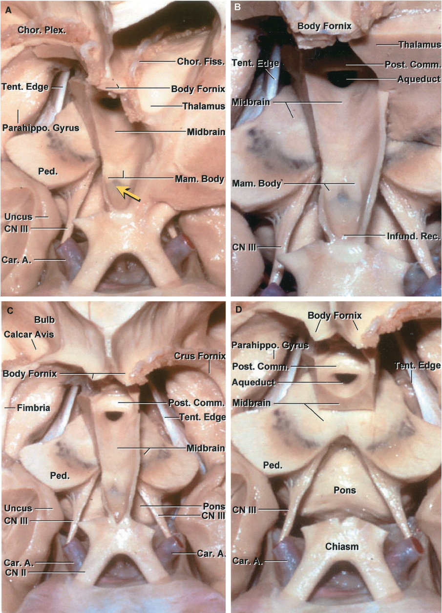 FIGURE 5.14. Anterior view of the floor and lower part of the third ventricle. A, the right thalamus has been removed. The posterior part of the floor of the third ventricle is formed by the upper surface of the midbrain located behind the mamillary bodies. The tentorial edges join at the tentorial apex located in the quadrigeminal cistern behind the aqueduct. The choroidal fissure in the body of the ventricle is located between the body of the fornix and the upper surface of the thalamus. The floor between the optic chiasm and mamillary bodies is located above the chiasmatic cistern. The most common site for a third ventriculostomy is located just in front of the mamillary bodies. B, the anterior part of the left thalamus has been removed to expose the cerebral peduncles and upper midbrain on both sides of the third ventricle. The oculomotor nerves arise below the posterior part of the floor of the third ventricle. The infundibular recess is located behind the optic chiasm. The pons is exposed below the mamillary bodies and infundibular recess. C, both thalami have been removed. The third ventricular floor extends from the optic chiasm to the aqueduct. The choroidal fissure in the body of the ventricle is located between the body of the fornix and the thalamus, in the atrium it is between the crus of the fornix and the pulvinar, and in the temporal horn it is between the fimbria and lower surface of the thalamus. D, enlarged view. The upper midbrain and pons are located below the floor of the third ventricle. The oculomotor nerves exit the midbrain below the floor. The aqueduct and posterior commissure are positioned in the posterior wall of the third ventricle in front of the tentorial apex and quadrigeminal cistern. A., artery; Car., carotid; Chor., choroid; CN, cranial nerve; Comm., commissure; Infund., infundibular; Mam., mamillary; Parahippo., parahippocampal; Ped., peduncle; Plex., plexus; Post., posterior; Rec., recess; Tent., tentorial.