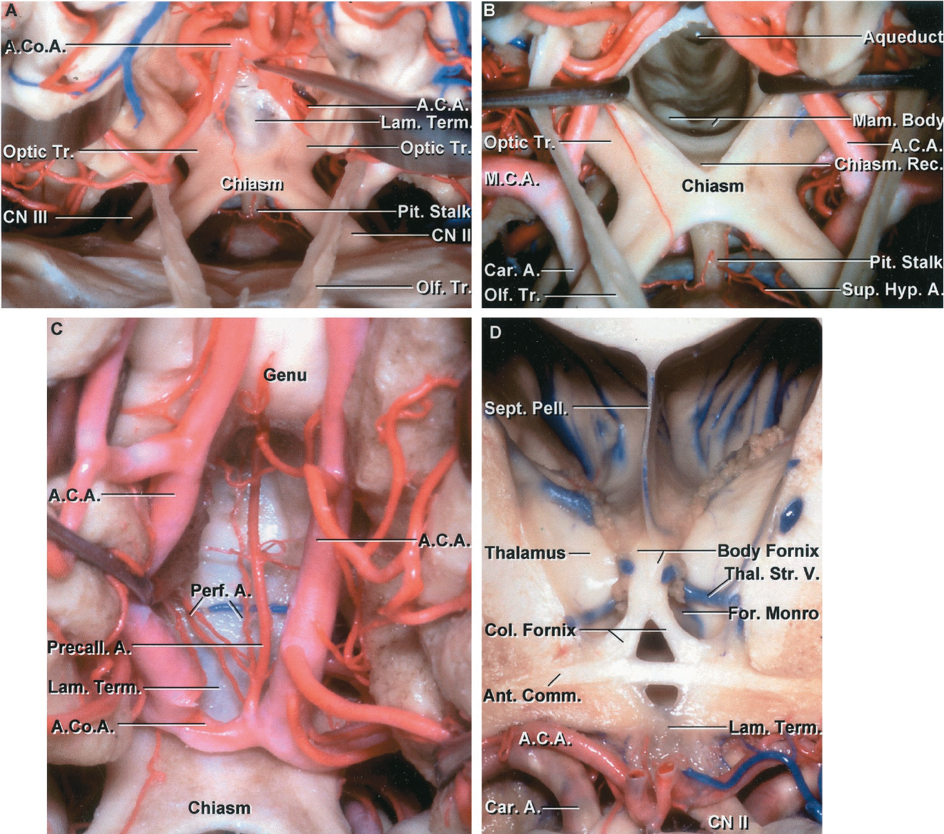 FIGURE 5.15. A-D. Anterior wall of the third ventricle. A, the frontal lobe and the anterior carotid arteries have been elevated to expose the optic chiasm and lamina terminalis. The pituitary stalk extends downward from the floor of the third ventricle. The optic tracts pass along the lateral margin of the floor of the third ventricle. The lamina terminalis blends above into the rostrum of the corpus callosum. The olfactory tracts pass backward above the optic nerves. B, the lamina terminalis has been opened to expose the chiasmatic recess, mamillary bodies, and aqueduct. The pituitary stalk is exposed below the infundibular recess located behind the optic chiasm and in front of the mamillary bodies. Superior hypophyseal arteries pass medially from the carotid artery. C, another third ventricle. The anterior communicating artery commonly passes in front of the lamina terminalis. Perforating arteries arise from a precallosal branch of the anterior communicating artery and penetrate the anterior wall of the third ventricle to reach the columns of the fornix. D, anterior view of a cross section through the anterior part of the third ventricle and body of the lateral ventricle. The lamina terminalis, which has been opened, extends upward in front of the anterior commissure and blends into the rostrum of the corpus callosum. The anterior cerebral arteries have been folded forward. The choroid plexus extends through the foramen of Monro into the roof of the third ventricle below and the body of the lateral ventricle above.