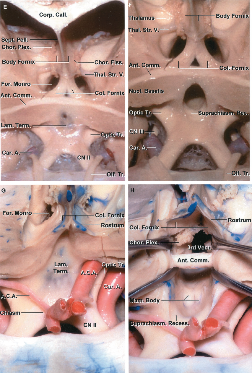 FIGURE 5.15. E-H. E, the cross section of another third ventricle extends through the anterior commissure. The body of the fornix sits in the floor of the body of the ventricle. The columns of the fornix pass around the superior and anterior margins of the foramen of Monro and behind the anterior commissure. The lamina terminalis extends upward from the chiasm. F, enlarged view. The lamina terminalis has been opened. The chiasmatic recess is located between the lower part of the lamina terminalis and the posterior part of the optic chiasm. The nucleus basalis is located below the lateral part of the anterior commissure. G, another third ventricle. The lamina terminalis extends upward from the optic chiasm and blends into the rostrum of the corpus callosum. H, the lamina terminalis has been opened. The posterior margin of the chiasm is exposed behind the anterior communicating artery. The anterior commissure is exposed behind the upper edge of the lamina terminalis. The incision has been extended upward through the rostrum of the corpus callosum between the columns of the fornix. This exposes the roof of the third ventricle above the anterior commissure. The choroid plexus hangs down from the tela into the roof of the third ventricle. The mamillary bodies are exposed in the floor. A., artery; A.C.A., anterior cerebral artery; A.Co.A., anterior communicating artery; Ant., anterior; Car., carotid; Chiasm., chiasmatic; Chor., choroid; CN, cranial nerve; Col., column; Fiss., fissure; For., foramen; Hyp., hypophyseal; Lam., lamina; Mam., mamillary; M.C.A., middle cerebral artery; Nucl., nucleus; Olf., olfactory; Pell., pellucidum; Perf., perforating; Pit., pituitary; Plex., plexus; Precall., precallosal; Rec., recess; Sept., septum; Sup., superior; Suprachiasm., suprachiasmatic; Term., terminalis; Thal. Str., thalamostriate; Tr., tract; V., vein; Vent., ventricle.