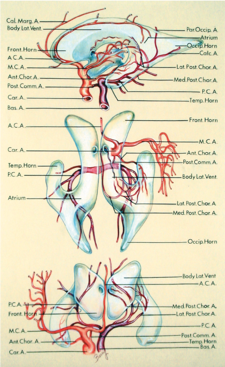 FIGURE 5.17. Arterial relationships of the lateral ventricles. Lateral (top), superior (middle), and anterior (bottom) views. The internal carotid artery and its branches are shown in orange, and the basilar artery and its branches are shown in red. The internal carotid, basilar, anterior, middle, posterior cerebral, and anterior, lateral, and medial posterior choroidal arteries all have important relationships to the frontal, temporal, and occipital horns and the atria and bodies of the lateral ventricles. The carotid arteries bifurcate into their anterior and middle cerebral branches in the area below the posterior part of the frontal horns. The origins of the middle cerebral arteries are situated below the frontal horns. The anterior cerebral arteries pass anteromedially below the frontal horns and give rise to the pericallosal and callosomarginal branches, which curve around the anterior wall and roof of the frontal horn. The anterior choroidal arteries enter the anterior part of the temporal horns. The posterior communicating arteries are situated below the thalami and bodies of the lateral ventricles. The basilar artery bifurcates below the bodies of the lateral ventricles into the posterior cerebral arteries, which course below the thalami near the medial aspect of the temporal horns and atria. The medial posterior choroidal arteries arise from the proximal part of the posterior cerebral arteries, encircle the brainstem below the thalami, and pass forward in the roof of the third ventricle, where they give branches to the choroid plexus in the roof of the third ventricle and the bodies of the lateral ventricles. The lateral posterior choroidal branches of the posterior cerebral arteries pass laterally through the choroidal fissures to enter the temporal horns and atria of the lateral ventricles. The middle cerebral arteries course on the insulae in the area above the temporal horns and lateral to the bodies of the lateral ventricles. The posterior cerebral ar