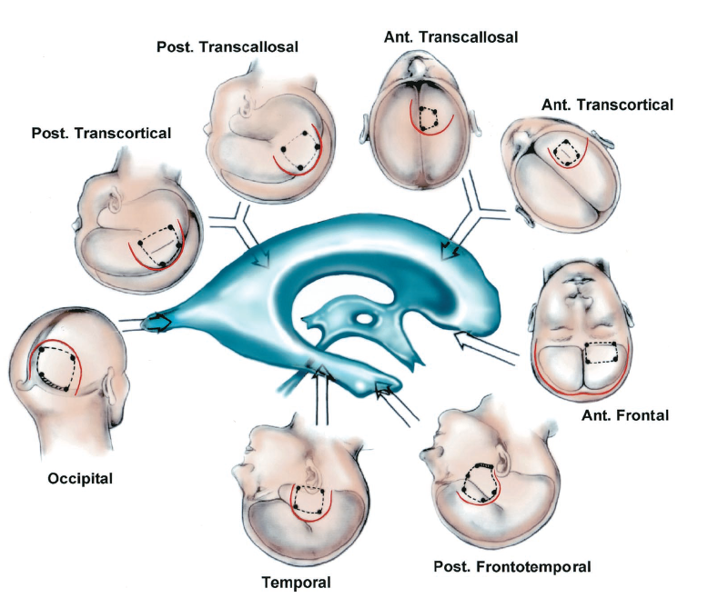 FIGURE 5.21. Surgical approaches to the lateral ventricles. The site of the skin incision (solid line) and the bone flap (broken line) are shown for each approach. The anterior part of the lateral ventricle may be reached by the anterior transcallosal, anterior transcortical, and the frontal approaches. The posterior routes to the lateral ventricle are the posterior transcallosal, posterior transcortical, and occipital approaches. The inferior part of the lateral ventricle are reached using the frontotemporal and temporal approaches. Ant., anterior; Post., posterior.