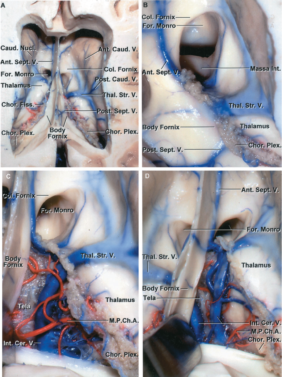 FIGURE 5.23. A-D. Transchoroidal approach to the third ventricle directed along the forniceal side of the choroidal fissure. A, superior view of the frontal horn and body of the lateral ventricle. The body of the fornix forms the upper part of the roof of the third ventricle. The left thalamostriate vein passes through the posterior margin of the foramen of Monro and the right thalamostriate vein passes through the choroidal fissure a few millimeters behind the foramen. Anterior septal and anterior caudate veins cross the wall of the frontal horn. Posterior septal and posterior caudate veins cross the wall of the body of the lateral ventricle. The thalamus sits in the floor of the body. The choroidal fissure, located between the thalamus and fornix, is opened by dividing the tenia fornix that attaches the choroid plexus to the lateral edge of the fornix, leaving the attachment of the choroid plexus to the thalamus undisturbed. B, enlarged view. The columns of the fornix form the anterior and superior wall of the foramen of Monro. The massa intermedia is seen through the foramen. Anterior and posterior septal veins cross the septum pellucidum and fornix. C, the tenia fornix, which attaches the choroid plexus to the fornix, has been divided and the body of the fornix retracted medially to expose the internal cerebral vein and medial posterior choroidal arteries. The lower layer of tela, which attaches to the striae medullaris thalami and forms the floor of the velum interpositum, is intact. D, the separation of the fornix and choroid plexus has been extended posteriorly to the junction of the atrium and body of the ventricle. The lower layer of tela remains intact.