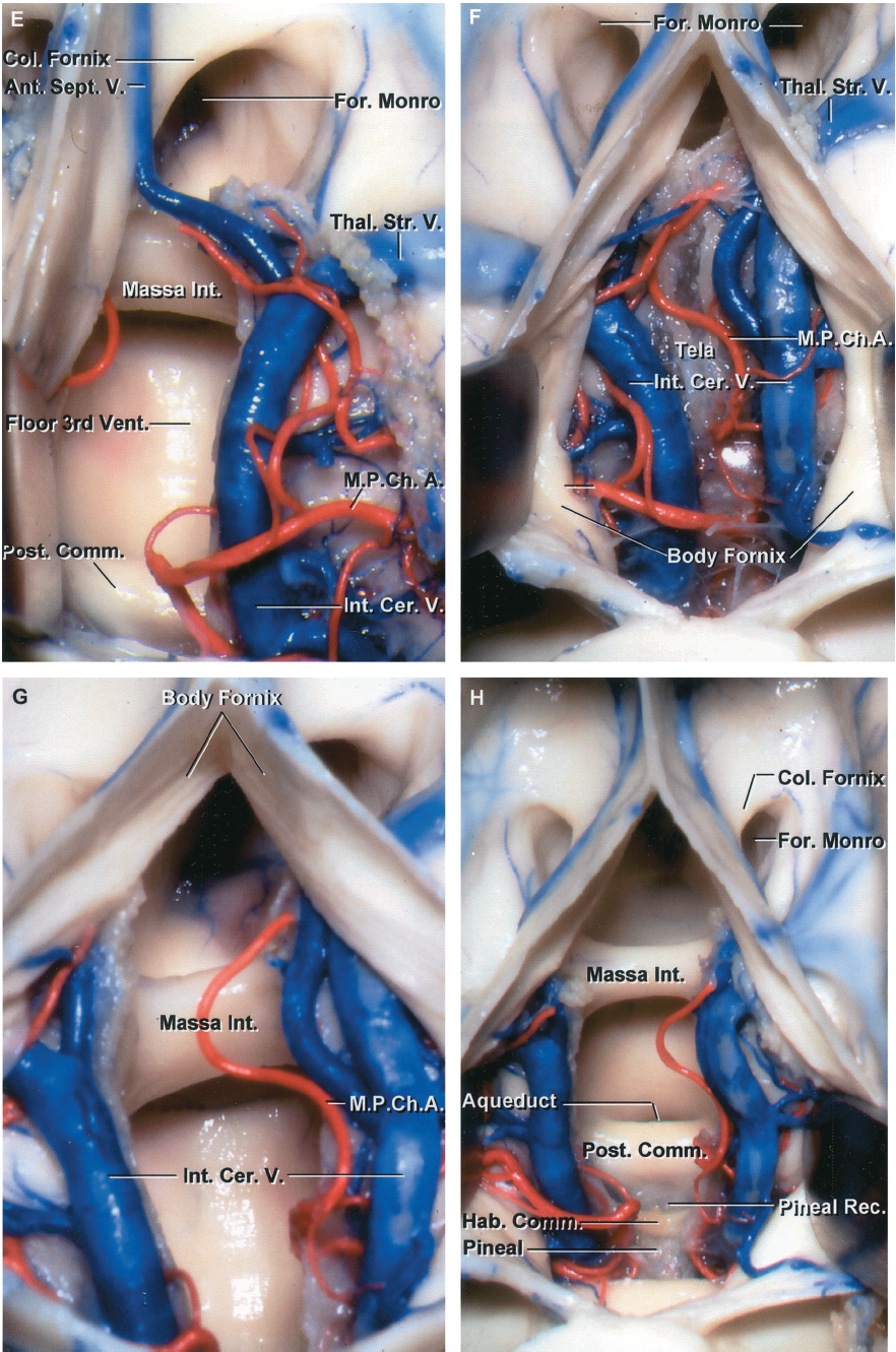 FIGURE 5.23. E-H. E, the lower layer of tela has been opened to expose the massa intermedia, posterior commissure, and the floor of the third ventricle. The ependyma covering the anterior septal vein has been opened so that a short segment of the vein can be mobilized. The possibility of damaging the thalamostriate vein is reduced by allowing the choroid plexus to remain attached to the thalamus and the upper surface of the vein. F–H, interforniceal approach. F, the interforniceal approach is completed by incising the fornix longitudinally in the midline. Each half of the body of the fornix has been retracted laterally to expose the internal cerebral veins, medial posterior choroidal arteries, and the layer of tela choroidea that attaches to the striae medullaris thalami. G, the tela has been opened to expose the floor of the third ventricle and the massa intermedia. H, the view has been directed posteriorly toward the aqueduct and the posterior and habenular commissures. The pineal recess extends into the base of the pineal between the habenular and posterior commissures. The pineal gland extends backward from the pineal recess. Ant., anterior; Caud., caudate; Cer., cerebral; Chor., choroid; Col., column; Comm., commissure; Fiss., fissure; For., foramen; Hab., habenular; Int., intermedia, internal; M.P.Ch.A., medial posterior choroidal artery; Nucl., nucleus; Plex., plexus; Post., posterior; Rec., recess; Sept., septal; Thal.Str., thalamostriate; V., vein; Vent., ventricle.
