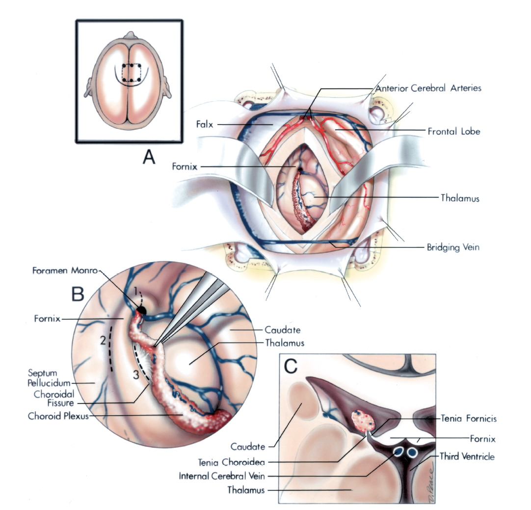FIGURE 5.24. A-C. Transcallosal approach to the lateral and third ventricles. A–C, normal ventricular anatomy. A, the body and frontal horn of the right lateral ventricle have been exposed through an incision in the anterior part of the corpus callosum. The inset on the upper left shows the head position, scalp incision (solid line) and bone flap (broken line). The bone flap extends across the superior sagittal sinus. An alternative would be to use a Souttar incision and to have the bone flap extend only to the lateral edge of the superior sagittal sinus. B, sites of incisions used to reach lesions in the third ventricle: (No. 1) the foramen of Monro may be enlarged by incising the ipsilateral column of the fornix, at the anterosuperior margin of the foramen of Monro; (No. 2) the transforniceal approach is completed using an incision along the body of the fornix in the midline; and (No. 3) the transchoroidal approach is completed by opening the choroidal fissure by incising along the tenia fornicis. C, the transchoroidal approach is completed by incision along the tenia fornicis rather than the tenia choroidea, also referred to as the tenia thalami, because more veins and arteries pass through the tenia choroidea than the tenia fornicis. The internal cerebral veins course in the roof of the third ventricle.