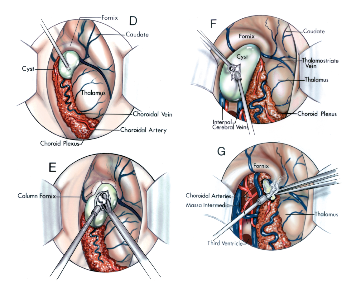 FIGURE 5.24. D-G. D and F, removal of a large colloid cyst by the transchoroidal approach. D, a colloid cyst that obstructs the foramen of Monro is being aspirated with a needle. E, a colloid cyst that obstructs the foramen of Monro has been exposed by opening the choroidal fissure along the attachment of the choroid plexus to the fornix. The internal cerebral veins and medial posterior choroidal arteries are exposed behind the foramen of Monro. The cyst's contents are being removed with a suction. F, the final remnant of the attachment of the cyst to the choroid plexus is being coagulated. G, the column of the fornix has been divided to enlarge the foramen of Monro and the semigelatinous material within the cyst is being removed using a cup forceps and suction.