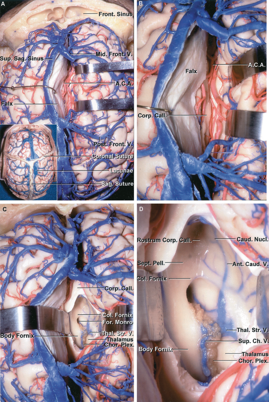 FIGURE 5.3 A-D. Stepwise dissection used during our microsurgery courses to expose the lateral and third ventricles and the choroidal fissure. A, the dissection is begun by examining the relationships in the anterior transcallosal approach to the third ventricle. The right frontal lobe, between the large middle and posterior frontal bridging veins, has been retracted away from the falx to expose the anterior cerebral arteries coursing on the upper surface of the corpus callosum. The inset shows the relationship to the coronal suture. There is usually an area just in front of the coronal suture that is relatively devoid of bridging veins entering the superior sagittal sinus. The bone flap for the transcallosal approach is placed two-thirds in front and one-third behind the coronal suture. B, enlarged view. The falx and frontal lobe have been retracted to expose the anterior cerebral arteries above the corpus callosum. The veins draining the medial surface of the hemisphere often join the veins from the lateral surface to form large bridging veins that empty into the sagittal sinus. C, the corpus callosum has been opened to expose the fornix coursing anterior and superior to the foramen of Monro. The transcallosal opening has been completed without sacrificing a bridging vein. D, enlarged view. The anterior caudate and superior choroidal veins join the anterior end of the thalamostriate vein. The column of the fornix passes anterior and superior to the foramen of Monro. The choroidal fissure begins at the posterior edge of the foramen of Monro where the choroid plexus is attached by the tenia fimbria and tenia thalami to the fornix and thalamus. The floor of the frontal horn is formed by the rostrum of the corpus callosum, the medial wall by the septum pellucidum, and the lateral wall by the caudate nucleus.