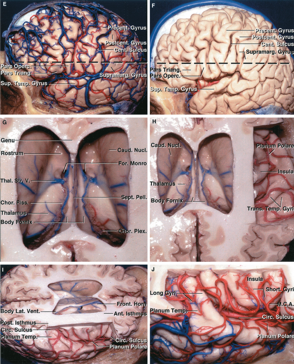 FIGURE 5.3 E-J. E, lateral view of the hemisphere. In the next step, the sulci and gyri on the lateral surface are examined (Fig. 1.1). The central sulcus ascends between the pre- and postcentral gyri. The precentral gyrus is located behind the pars opercularis. The postcentral gyrus is located in front of the anterior part of the supramarginal gyrus. To expose the ventricles for the dissection in the laboratory, an axial cut through the hemisphere is completed 1 cm above the posterior end of the long axis of the sylvian fissure (broken line). F, the same hemisphere after removal of the arteries and veins. The site of the cut (broken line) to expose the ventricles crosses the inferior frontal gyrus, the lower part of the central sulcus, and the supramarginal gyrus. G, superior view into the lateral ventricles. The caudate nucleus forms the lateral wall and the septum pellucidum forms the medial wall of the frontal horn and body of the lateral ventricle. The rostrum of the corpus callosum forms the floor of the frontal horn. The thalamus is in the floor of the body of the lateral ventricle. The third ventricle is located below the body of the fornix. The choroid plexus is attached along the choroidal fissure located between the fornix and thalamus. H, the frontoparietal operculum has been removed to expose the insula lateral to the frontal horn and body of the lateral ventricle. Branches of the middle cerebral artery cross the insula and the plana temporale and polare. I, superolateral view. The middle cerebral artery enters the operculoinsular compartment of the sylvian fissure by crossing the limen insula at the anteroinferior margin of the insula. The anterior part of the circular sulcus is separated from the frontal horn by the anterior isthmus of the central core of the hemisphere, and the posterior part of the circular sulcus is separated from the atrium by the posterior isthmus. J, enlarged view of the middle cerebral branches coursing along the insula. The up