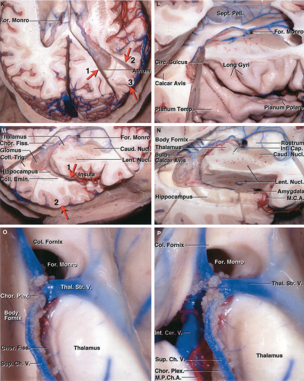 FIGURE 5.3 K-P. K, the initial cut through the hemisphere exposes the frontal horns and bodies of the lateral ventricles. Three cuts, two coronal cuts and one horizontal, are then completed to expose the atrium and posterior part of the temporal horn. The posterior coronal cut (No. 1) is directed obliquely forward along the medial wall of the atrium. The second coronal cut (No. 2) crosses the hemisphere at the anterior part of the atrium just behind the pulvinar. The horizontal cut (No. 3) is located at the level of the floor of the atrium. The three cuts expose the atrium from the pulvinar back to the medial wall. L, superolateral view obtained with cuts shown in K. M, the temporal horn is exposed using two cuts. One (No. 1) is directed through the lower margin of the circular sulcus to the temporal horn, and the second is a transverse cut (No. 2) located at the level of the floor of the temporal horn. Removing the block of tissue between the two cuts exposes the temporal horn. The collateral eminence overlying the deep end of the collateral sulcus is well seen, but it is difficult to see the hippocampus because it is located further medially below the insula and lentiform nucleus. N, a sagittal cut medial to the insula exposes the lentiform nucleus. The incision extends through the lentiform nucleus and amygdala. The full length of the choroidal fissure from the foramen of Monro to the inferior choroidal point, located behind the head of the hippocampus, is exposed. The bulb of the corpus callosum overlying the forceps major and the calcar avis overlying the deep end of the calcarine sulcus are exposed in the medial wall of the atrium. O, enlarged view of the foramen of Monro. The columns of the fornix pass around the superior and anterior margins of the foramen of Monro. The anterior nucleus of the thalamus sits in the posterior margin of the foramen of Monro. The thalamostriate vein passes forward between the caudate nucleus and thalamus and through the posterio