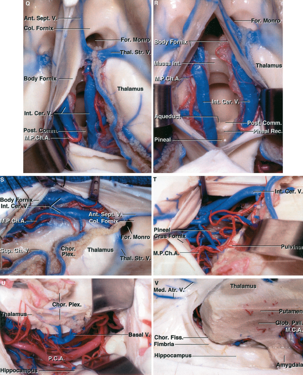 FIGURE 5.3 Q-V. Q, the opening in the choroidal fissure has been extended back to the area above the posterior commissure by dividing the tenia fornix. The choroid plexus is not disturbed on the thalamic side of the choroidal fissure. Branches of the medial posterior choroidal artery course with the internal cerebral veins. R, an interforniceal approach, in which the body of the fornix is divided longitudinally in the midline, has been completed. The massa intermedia, aqueduct, posterior commissure, pineal recess, and pineal are exposed. S, superolateral view of the dissection. The velum interpositum, located between the upper and lower layers of tela and in which the internal cerebral veins and medial posterior choroidal arteries course, has been exposed. The lower layer of tela attached to the striae medullaris thalami has not been opened. Both internal cerebral veins are exposed posterior to the foramen of Monro. If a vein at the foramen of Monro is to be sacrificed, it is preferable to sacrifice the anterior septal rather than the thalamostriate vein. T, the exposure has been extended back to the atrium where the choroid fissure has been opened by dividing the tenia fornix along the edge of the crus of the fornix. The medial posterior choroidal arteries pass along the side of the pineal and through the quadrigeminal cistern to reach the roof of the third ventricle. U, the opening in the choroidal fissure has been extended to the temporal horn. The choroidal fissure has been opened by dividing the tenia on the edge of the fimbria of the fornix to expose the posterior cerebral artery and basal veins. The choroid plexus remains attached to the thalamus. V, the choroid plexus in the right lateral ventricle has been removed. The medial atrial vein drains into the internal cerebral veins. The amygdala is exposed below the globus pallidus and just behind the middle cerebral artery coursing in the sylvian fissure. The amygdala forms the anterior wall and anterior part o