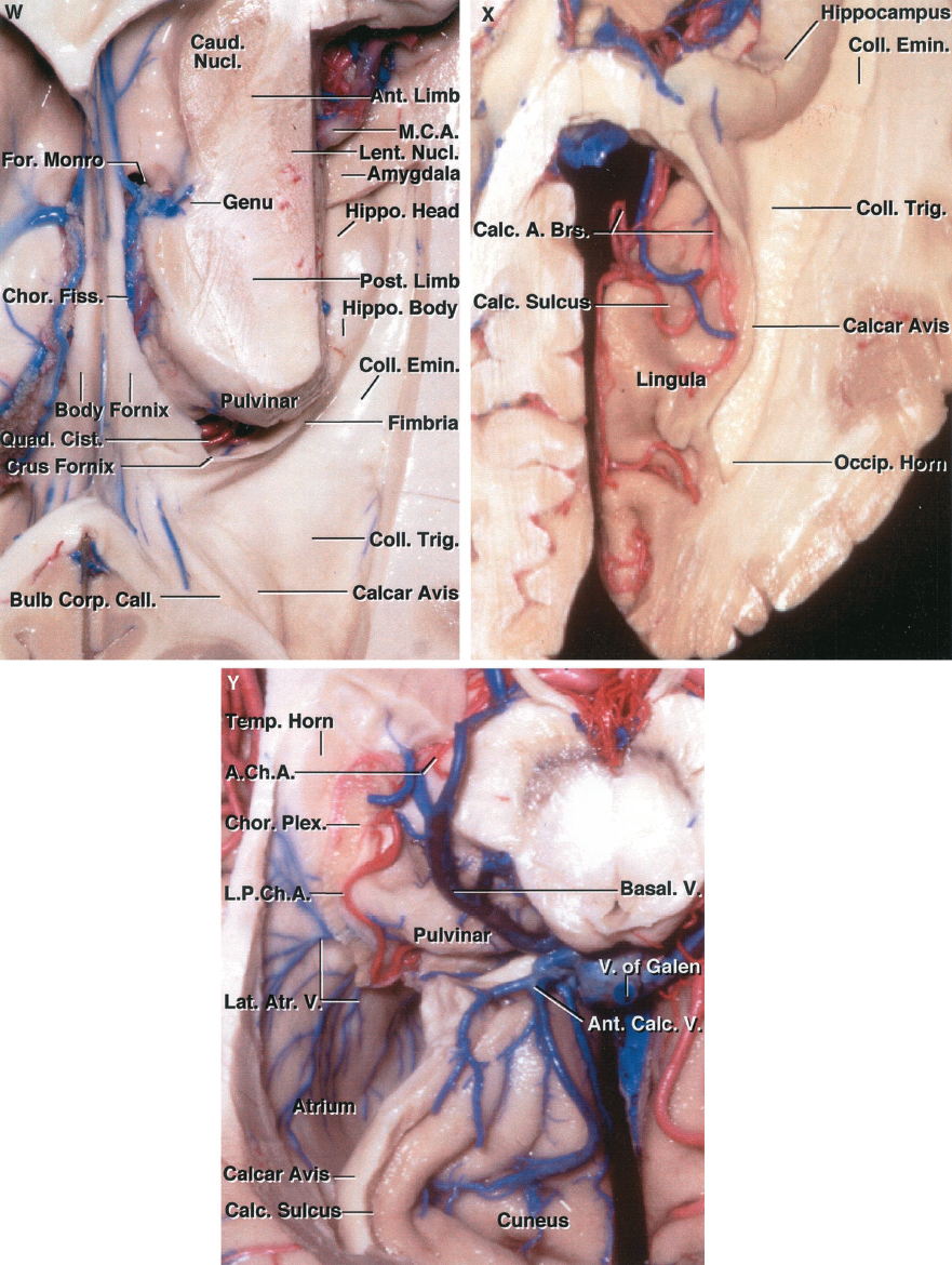 FIGURE 5.3 W-Y.W, superior view. The choroid plexus in the right lateral ventricle has been removed after opening the choroidal fissure from the foramen of Monro to the inferior choroidal point located just behind the head of the hippocampus. The axial section through the right hemisphere extends through the internal capsule. The genu of the internal capsule comes directly to the ventricular surface in the area lateral to the foramen of Monro. The lateral part of the floor of the temporal horn is formed by the collateral eminence, and the floor of the atrium is formed by the collateral triangle. Both the collateral eminence and trigone overlie the deep end of the collateral sulcus, which courses along the basal surface of the hemisphere between the parahippocampal and occipitotemporal gyri. The calcar avis, overlying the deep end of the calcarine sulcus, and the bulb, overlying the forceps major, are exposed in the medial wall of the atrium. X, superior view of the temporal and occipital horns with the upper part of the hemisphere removed. The section extends through the depths of the calcarine sulcus. The cuneus, forming the upper lip of the calcarine sulcus, has been removed to expose the lingula, forming the lower lip of the fissure. The calcarine sulcus extends so deeply into the medial part of the hemisphere that it produces a prominence, the calcar avis, in the medial wall of the atrium and occipital horn. Y, inferior view of the calcar avis. The lingula, forming the lower lip of the calcarine sulcus, has been removed to expose the cuneus, forming the upper lip of the sulcus. The calcarine sulcus cuts so deeply into the hemisphere that it produces a prominence in the medial wall of the atrium. The lateral atrial veins cross the lateral atrial wall. The lower part of the temporal lobe has been removed to expose the roof of the temporal lobe. The choroid plexus is attached to the lower surface of the thalamus. The anterior and lateral posterior choroidal arterie