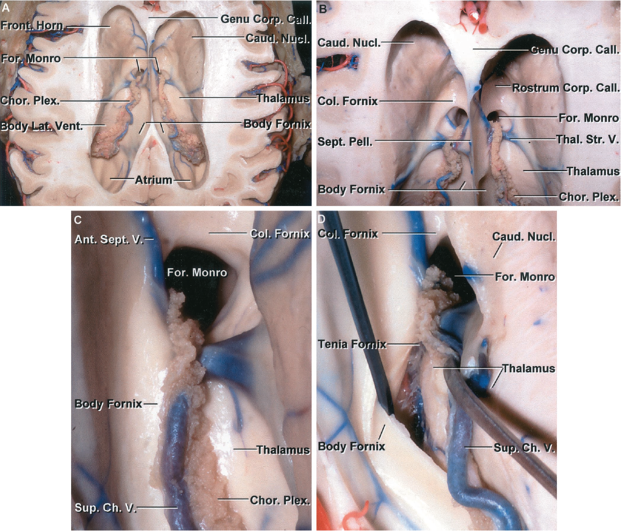 FIGURE 5.6. A-D. Stepwise dissection of the choroidal fissure. A, superior view of the lateral ventricles. The choroidal fissure is the cleft between the fornix and the thalamus along which the choroid plexus is attached. The frontal horn is located anterior and the ventricular body behind the foramen of Monro. The thalamus forms the floor of the body of the lateral ventricle and the anterior wall of the atrium. B, enlarged view. The columns of the fornix form the anterior and superior margins of the foramen of Monro. The choroid plexus in the body extends through the posterior margin of the foramen of Monro and is continuous with the choroid plexus in the roof of the third ventricle. The right thalamostriate vein passes through the posterior edge of the foramen of Monro and the left thalamostriate vein passes through the choroidal fissure behind the foramen. The floor of the frontal horn is formed by the rostrum, and the anterior wall is formed by the genu of the corpus callosum. The lateral wall is formed by the caudate nucleus. The septum pellucidum is attached to the upper edge of the body of the fornix. C, enlarged view of the foramen of Monro. The columns of the fornix form the anterior and superior margins of the foramen. An anterior septal vein passes backward along the septum pellucidum and crosses the column of the fornix. The thalamostriate vein passes forward between the caudate nucleus and thalamus and turns medially to pass through the posterior margin of the foramen of Monro to empty into the internal cerebral vein. The choroid plexus is attached medially by the tenia fornix to the body of the fornix and laterally by the tenia thalami to the thalamus. D, the transchoroidal exposure is begun by dividing the tenia fornix that attaches the choroid plexus to the margin of the fornix. The tenia thalami that attaches the choroid plexus to the thalamus is not opened.