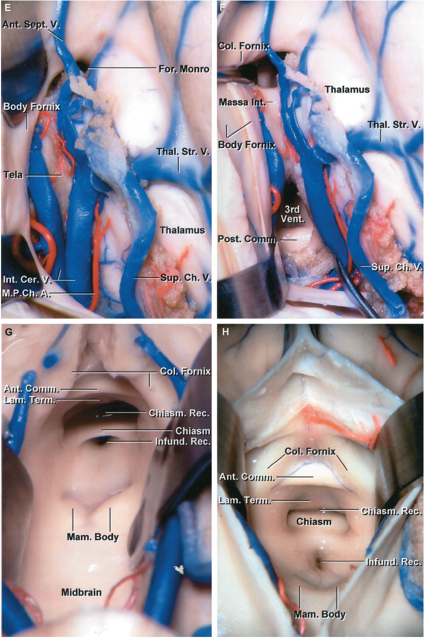 FIGURE 5.6. E-H.E, the opening of the choroidal fissure has been extended backward from the foramen of Monro to expose both internal cerebral veins and the medial posterior choroidal arteries coursing in the velum interpositum. The anterior septal vein crosses the septum pellucidum. The lower layer of tela choroidea, attached to the striae medullaris thalami deep to the internal cerebral veins, is intact. F, the lower layer of tela choroidea that forms the floor of the velum interpositum has been opened, exposing the massa intermedia and posterior commissure within the third ventricle. G, the internal cerebral veins have been separated to expose the anteroinferior part of the third ventricle. The upper end of the midbrain forms the posterior part of the floor of the third ventricle. The mamillary bodies are situated in the midportion of the floor. The floor anterior to the mamillary bodies and behind the infundibular recess in very thin and is the site commonly opened in a third ventriculostomy. The chiasmatic recess extends forward above the posterior edge of the optic chiasm and below the anterior commissure. H, enlarged view of the inner surface of the anterior wall of the third ventricle. The columns of the fornix extend downward behind the anterior commissure toward the mamillary bodies. The lamina terminalis, chiasmatic recess, posterior edge of the chiasm, and the infundibular recess are located along the anterior and lower wall of the third ventricle.