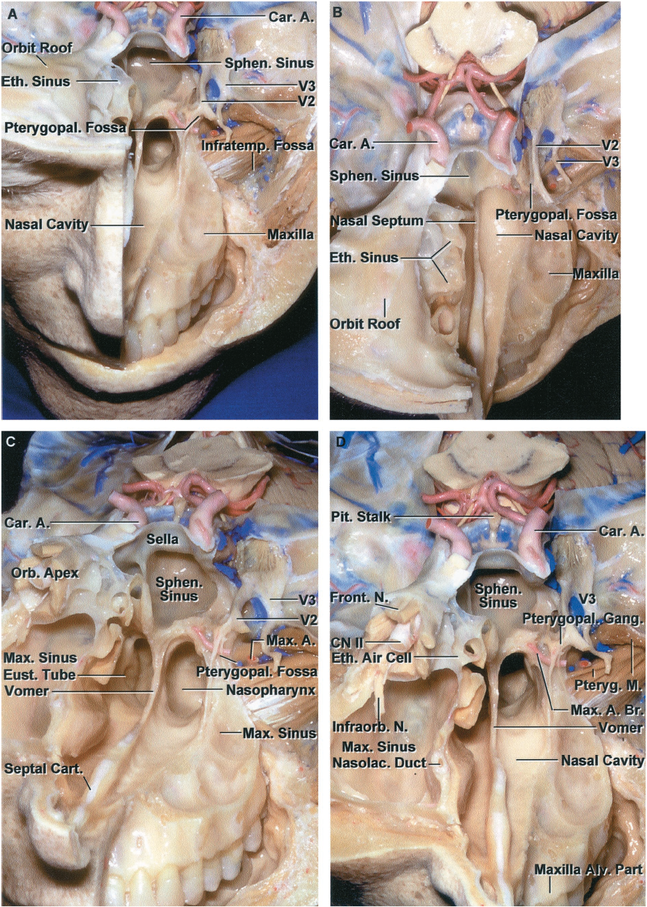 FIGURE 6.1. Anterior and middle cranial base. A, on the left side, the floor of the anterior fossa and the upper portion of the maxilla have been removed to expose the structures deep to the anterior and middle cranial fossa. The frontal, ethmoidal, and sphenoid sinuses and the nasal cavity lie below the medial part of the anterior cranial base. The orbit and maxilla are located below the lateral part of the anterior cranial base. The sphenoid sinus and sella are located in the medial part of the middle cranial base, and the infratemporal and pterygopalatine fossa are located below the lateral part of the middle cranial base. The carotid arteries pass upward on the medial part of the middle cranial base and are intimately related to the sphenoid and cavernous sinuses. The infratemporal fossa, which contains branches of the mandibular nerve, pterygoid muscles, pterygoid venous plexus, and maxillary artery, is located below the middle cranial base and greater sphenoid wing. The alveolar process of the maxilla, which encloses the roots of the upper teeth, has been preserved on the left side. The maxillary nerve enters the pterygopalatine fossa, which is located medial to the infratemporal fossa between the posterior wall of the maxilla and the pterygoid process of the sphenoid bone. B, superior view of the anterior and middle cranial base. The infratemporal fossa is located posterolateral to the maxilla. The right ethmoid air cells are exposed on the medial side of the right orbit. The nasal cavity extends upward between the ethmoidal sinuses. C, oblique anterior view. The facial structures on the right side have been removed to expose the orbital apex located above the maxillary sinus. The walls of the right maxillary sinus form the floor of the orbit, much of the lateral wall of the nasal cavity, and the anterior wall of the pterygopalatine and infratemporal fossa. On the left side, the mandibular nerve enters the infratemporal fossa. The maxillary nerve enters the pterygopalatine fossa, which is located in the lateral wall of the nasal cavity and contains the maxillary nerve, pterygopalatine ganglion, and terminal branches of the maxillary artery. D, anterior view. The orbital apex is located above the pterygopalatine fossa. The frontal branch of the ophthalmic nerve passes along the roof of the orbit, and the infraorbital branch of the maxillary nerve courses in the floor of the orbit. The posterior ethmoid air cells are located medial to the orbital apex. The vomer forms the posterior part of the nasal septum and attaches to the maxilla and palatine bones below and to the body of the sphenoid bone above. The sphenoid sinus is located in the middle cranial base below the sella turcica. The upper brainstem is seen in the posterior part of the exposure. A., artery; Alv., alveolar; Br., branch; Car., carotid; Cart., cartilage; CN, cranial nerve; Eth., ethmoid; Eust., eustachian; Foss., fossa; Front., frontal; Gang., ganglion; Infraorb., infraorbital; Infratemp., infratemporal; M., muscle; Max., maxillary; N., nerve; Nasolac., nasolacrimal; Orb., orbital; Pit., pituitary; Pteryg., pterygoid; Pterygopal., pterygopalatine; Sphen., sphenoid.