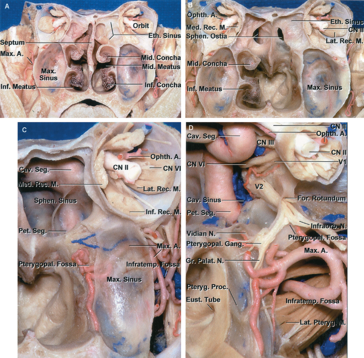 FIGURE 6.10. A, anterior view of a coronal section, anterior to the sphenoid sinus, through the nasal cavity, orbits, and maxillary sinuses. The upper part of the nasal cavity is separated from the orbits by the ethmoidal sinuses. The lower part of the nasal cavity is bounded laterally by the maxillary sinuses. The middle concha projects medially from the lateral nasal wall at the junction of the roof of the maxillary and ethmoidal sinuses. The posterior ethmoid air cells are located in front of the lateral part of the sphenoid sinus. B, the middle and inferior nasal conchae on the left side and the nasal septum and the posterior ethmoidal sinuses on both sides have been removed to expose the posterior nasopharyngeal wall, the anterior aspect of the sphenoid body, and the sphenoid ostia. The posterior ethmoid air cells overlap the lateral margin of the sphenoid ostia. C, enlarged view showing the relationships of the nasal cavity, pterygopalatine and infratemporal fossae, orbit, and sphenoid sinus. The nasopharynx is located below the sphenoid sinus. The pterygopalatine fossa is located in the lateral wall of the nasal cavity behind the upper part of the maxillary sinus and below the orbital apex. The posterior maxillary wall is so thin that the maxillary artery coursing in the pterygopalatine fossa can be seen through the bone. The sphenopalatine branch of the maxillary artery passes through the sphenopalatine foramen to reach the walls of the nasal cavity and the sphenoid face. D, the posterior wall of the maxillary sinus has been removed to expose the pterygopalatine and infratemporal fossae and the internal carotid artery and nerves coursing through the cavernous sinus. The maxillary artery passes through the infratemporal fossa and enters the pterygopalatine fossa, where it gives rise to branches that follow the branches of the maxillary nerve. Some of these arteries course along the sphenoid face where careful hemostasis during transsphenoidal surgery reduces the need for nasal packing after transsphenoidal operations. The maxillary nerve exits the foramen rotundum to enter the pterygopalatine fossa, where it gives rise to the infraorbital and greater palatine nerves and communicating rami to the pterygopalatine ganglion. The eustachian tube opens into the nasopharynx along the posterior edge of the medial pterygoid plate. A., artery; Cav., cavernous; CN, cranial nerve; Eth., ethmoid; Eust., eustachian; For., foramen; Gr., greater; Inf., inferior; Infraorb., infraorbital; Infratemp., infratemporal; Lat., lateral; M., muscle; Max., maxillary; Med., medial; Mid., middle; N., nerve; Ophth., ophthalmic; Palat., palatine; Pet., petrosal; Proc., process; Pteryg., pterygoid; Pterygopal., pterygopalatine; Rec., rectus; Seg., segment; Sphen., sphenoid.
