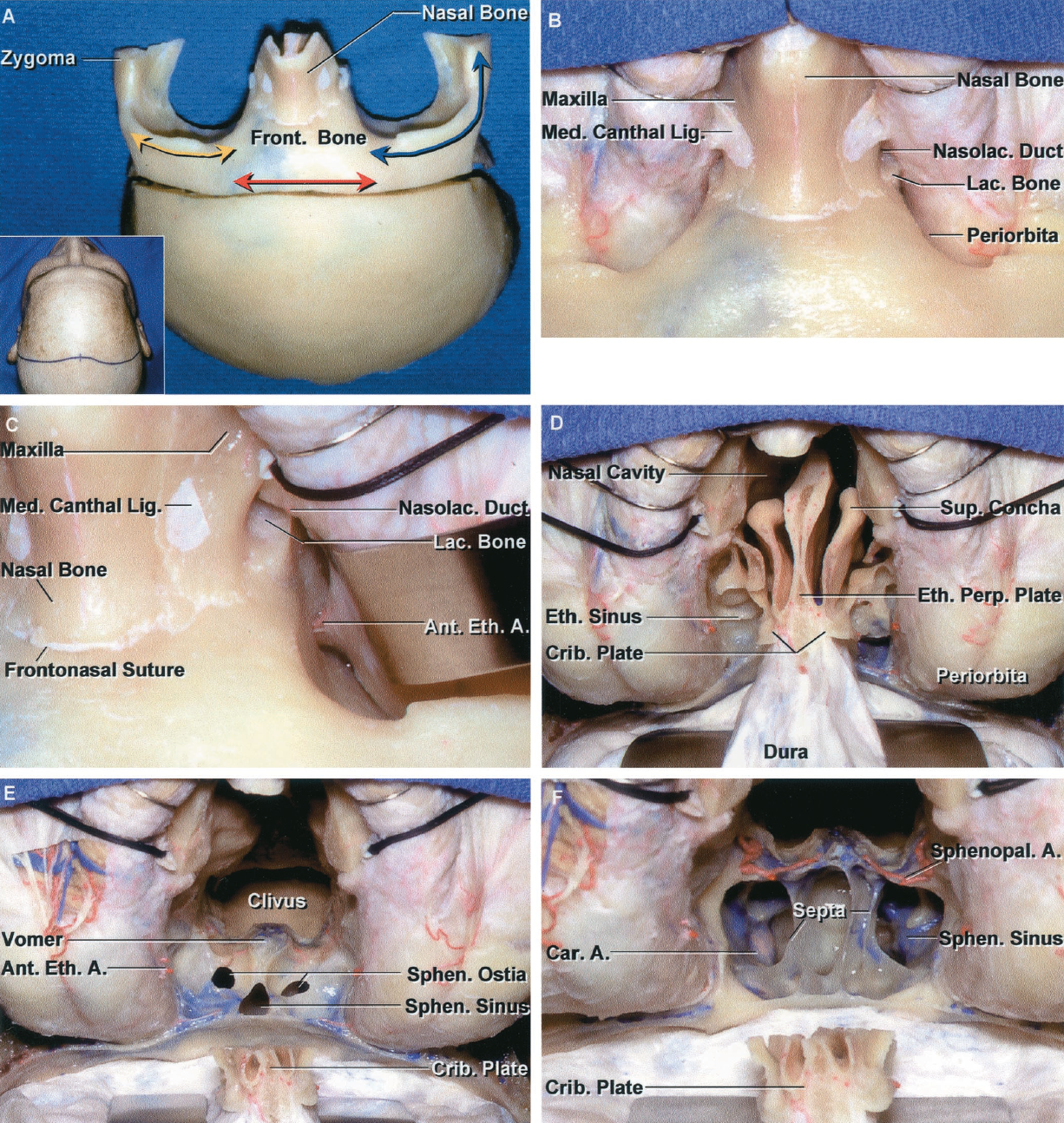 FIGURE 6.12. A–F, relationships in the transbasal and extended frontal approaches. A, the inset shows the bicoronal scalp incision. A large bifrontal craniotomy and a fronto-orbitozygomatic osteotomy have been completed. The osteotomized segment may extend through the nasal bone and from one to the other lateral orbital rims, as shown. However, for most lesions, a more limited bone flap and osteotomy will suffice and can be tailored as needed to deal with the involvement of the cranial base, nasal cavity, paranasal sinuses, or orbit. For an orbital lesion, an orbitofrontal craniotomy, elevating only the superior orbital rim (yellow arrows) and orbital roof, is all that is needed. For a cavernous sinus or unilateral lesions of the anterior or middle fossa, an orbitozygomatic osteotomy will usually suffice (blue arrow). For a clival lesion, a more limited bifrontal approach (red arrow) will suffice. B, the periorbita has been separated from the walls of the orbit in preparation for the osteotomies. Division of the medial canthal ligament is not necessary for most lesions, but may be required for lesions extending into the lower nasal cavity or orbit. The ligaments should be re-approximated at the end of the operation. C, the right medial canthal ligament has been divided and the orbital contents retracted laterally to expose the nasolacrimal duct and the anterior ethmoidal branch of the ophthalmic artery at the anterior ethmoidal foramen. D, the osteotomies have been completed and the frontal dura elevated. The dura remains attached at the cribriform plate. The upper parts of both orbits are exposed. E, an osteotomy around the cribriform plate leaves it attached to the dura and olfactory bulbs, a maneuver that has been attempted to preserve olfaction but has not been commonly successful. The anterior face of the sphenoid sinus and both sphenoid ostia are exposed between the orbits. F, the sphenoid sinus has been opened to expose the septa within the sinus. The sphenopalatine arteries cross the anterior face of the sphenoid.