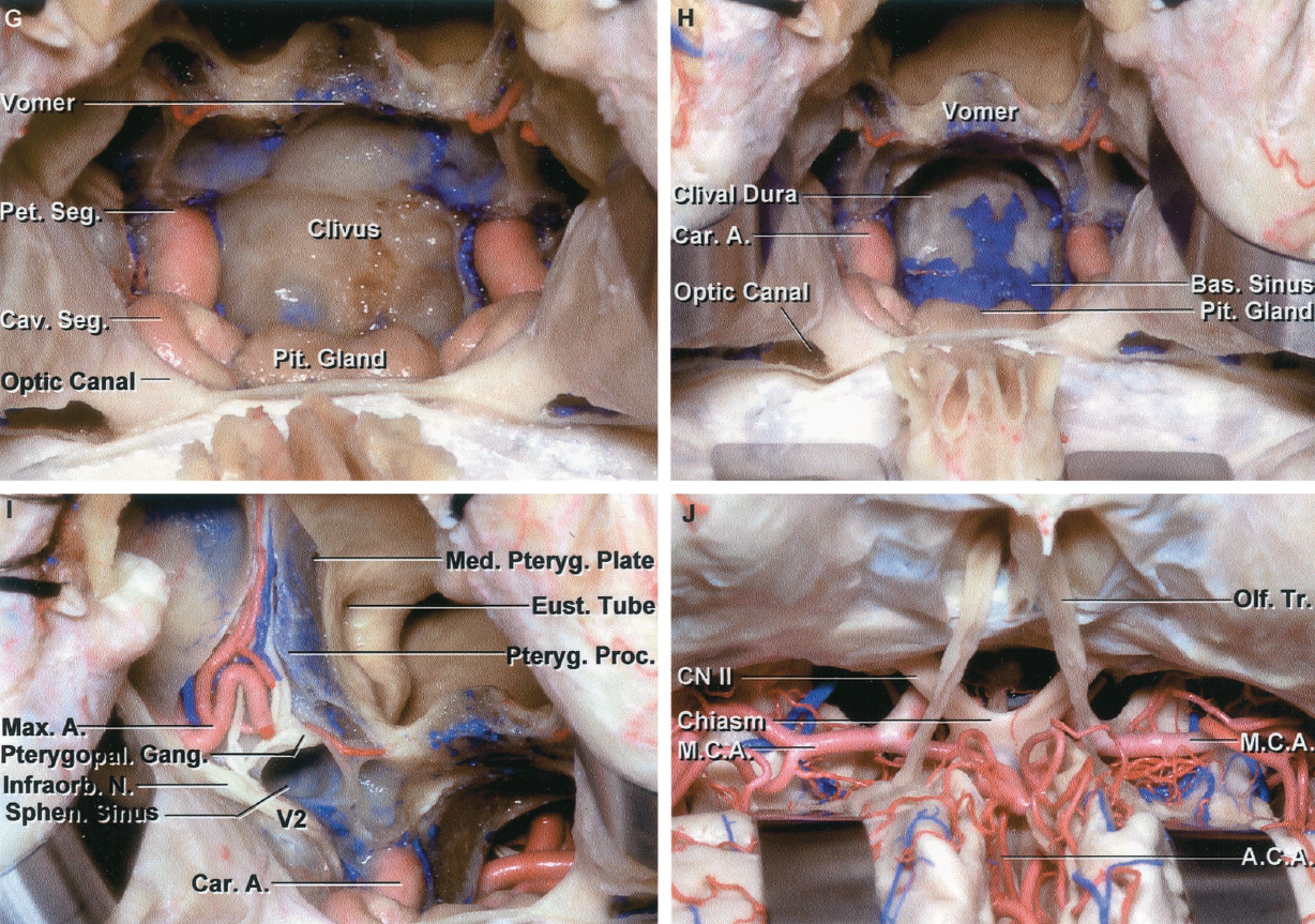 FIGURE 6.12. G–J. G, the septa within the sphenoid sinus, the sellar floor, and the lateral sinus wall have been removed to expose the intracavernous carotid, pituitary gland, and optic canals. H, the clivus has been opened to expose the dura facing the brainstem. The basilar sinus, which interconnects the posterior parts of the cavernous sinus, is situated between the layer of dura on the upper clivus. I, the exposure has been extended laterally by opening the medial and posterior wall of the maxillary sinus to expose the branches of the maxillary nerve and artery in the pterygopalatine fossa, located behind the posterior maxillary wall. The posterior wall of the pterygopalatine fossa is formed by the pterygoid process. The maxillary nerve enters the pterygopalatine fossa where it gives rise to the infraorbital nerve, which courses along the floor of the orbit and to the palatine nerves, which descend to the palatal area. The eustachian tube opens into the nasopharynx by passing along the posterior edge of the medial pterygoid plate. The lateral wing of the sphenoid sinus extends laterally below the maxillary nerve. J, the frontal dura has been opened and the frontal lobes elevated to expose the olfactory and optic nerves and the internal carotid and anterior and middle cerebral arteries. A., artery; A.C.A., anterior cerebral artery; Ant., anterior; Bas., basilar; Car., carotid; Cav., cavernous; CN, cranial nerve; Crib., cribriform; Eth., ethmoid, ethmoidal; Eust., eustachian; Front., frontal; Gang., ganglion; Infraorb., infraorbital; Lac., lacrimal; Lig., ligament; Max., maxillary; M.C.A., middle cerebral artery; Med., medial; N., nerve; Nasolac., nasolacrimal; Olf., olfactory; Perp., perpendicular; Pet., petrosal; Pit., pituitary; Proc., process; Pteryg., pterygoid; Pterygopal., pterygopalatine; Seg., segment; Sphen., sphenoid; Sphenopal., sphenopalatine; Sup., superior; Tr., tract.