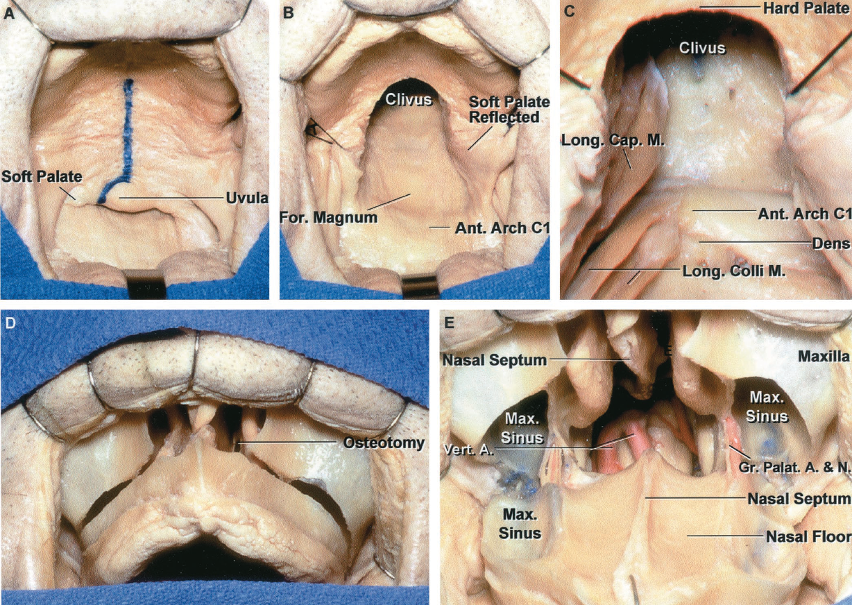 FIGURE 6.13. A, anterior view through the open mouth. The soft palate, which extends backward from the hard palate, will block the view of the upper clivus. An incision has been outlined in the midline of the soft palate. B, the soft palate has been divided to expose the mucosa lining the lower clivus. C, the pharyngeal mucosa has been opened in the midline and the left longus capitis and longus colli have been reflected laterally. D, the transverse maxillary (Le Fort I) osteotomy extends through the maxillary sinus above the apex of the teeth and below the infraorbital canals. E, the lower maxilla has been displaced downward. A clival window and vertebral arteries are seen through the exposure. A., artery; Ant., anterior; Cap., capitis; For., foramen; Gr., greater; Long., longus; M., muscle; Max., maxillary; N., nerve; Palat., palatine; Vert., vertebral.