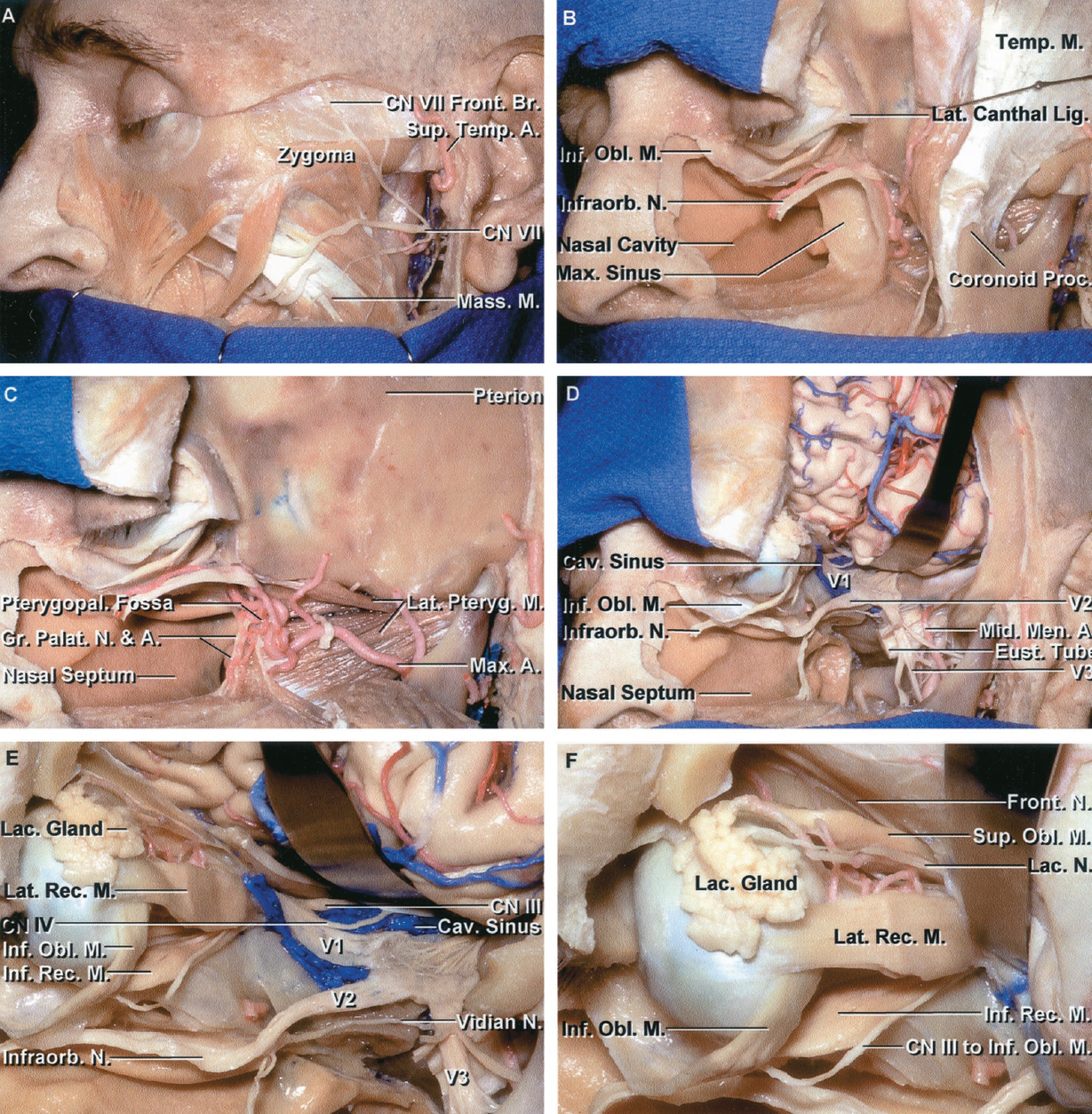 FIGURE 6.16. Upper subtotal maxillotomy. Exposure obtained with mobilization of the upper part of the maxilla. A, this approach uses paranasal, lower conjunctival, transverse temporal, and preauricular incisions. In the usual approach, the cheek flap is elevated as a single layer using subperiosteal dissection. In this dissection, the layers of the cheek flap were dissected separately to illustrate the structures in the flap. The facial muscles and branches of the facial nerve are exposed. The parotid gland has been removed. The frontal branch of the facial nerve crosses the middle portion of the zygomatic arch. If facial nerve branches are transected in the approach, they are tagged in preparation for reapproximation at closure. B, a hemicoronal scalp incision and reflection of the temporalis muscle exposes the lateral orbital rim. The cheek flap containing the facial muscles, branches of the facial nerve, parotid gland, and masseter muscle have been reflected inferiorly to the level of the maxillary attachment of the buccinator muscle. The orbital, maxillary, and zygomatic osteotomies have been completed and the lower half of the orbital rim, the anterior, medial, and lateral walls of the maxillary sinus, and the zygomatic arch have been reflected. The lower horizontal cut, located at the Le Fort I level, extends above the apical dental roots and hard palate and along the inferior nasal meatus medially. The maxillotomy, at this stage, does not include the posterior maxillary wall or cross the greater and lesser palatine canals. The lateral nasal wall was included with the maxillotomy to expose the nasal cavity. The infraorbital nerve, which crosses the orbital floor, may be preserved for reconstruction. C, the posterior wall of the maxillary sinus has been removed to expose the pterygopalatine fossa and the palatine nerves and arteries. The base of the coronoid process was divided, and the temporalis reflected downward to expose the lateral pterygoid muscle and maxillary artery in the infratemporal fossa. D, a frontotemporal bone flap has been elevated, the dura covering the frontal and temporal lobes and lateral wall of the cavernous sinus have been opened, and the temporal lobe has been elevated. The pterygoid muscles, the pterygoid process and plates, and the part of the middle fossa floor formed by the greater sphenoid wing have been removed to expose the nerves passing through the foramina rotundum and ovale. The eustachian tube is exposed behind the mandibular nerve and the middle meningeal artery. E, magnified view of the cavernous sinus, superior orbital fissure, and orbit. The oculomotor, trochlear, and ophthalmic nerves course through the lateral wall of the cavernous sinus. The ophthalmic nerve sends its branches along the upper part of the orbit. The maxillary nerve exits the foramen rotundum and passes through the pterygopalatine fossa, where it gives rise to the infraorbital nerve that courses along the floor of the orbit. The mandibular nerve passes through the foramen ovale and sends its branches through the infratemporal fossa. The vidian nerve passes forward in the vidian canal below the maxillary nerve to join the pterygopalatine ganglion in the pterygopalatine fossa. F, enlarged view of the orbital exposure. The lacrimal gland sits on the superolateral margin of the globe. The lacrimal nerve courses above the lateral rectus muscle. The inferior oblique muscle passes below the attachment of the inferior rectus muscle and upward between the globe and lateral rectus muscle to insert on the globe near the tendon of insertion of the superior oblique muscle. A., artery; Br., branch; Cav., cavernous; CN, cranial nerve; Eust., eustachian; Front., frontal; Gr., greater; Inf., inferior; Infraorb., infraorbital; Lac., lacrimal; Lat., lateral; Lig., ligament; M., muscle; Mass., masseter; Max., maxillary; Men., meningeal; Mid., middle; N., nerve; Obl., oblique; Palat., palatine; Proc., process; Pteryg., pterygoid; Pterygopal., pterygopalatine; Rec., rectus; Sup., superior; Temp., temporal, temporalis.