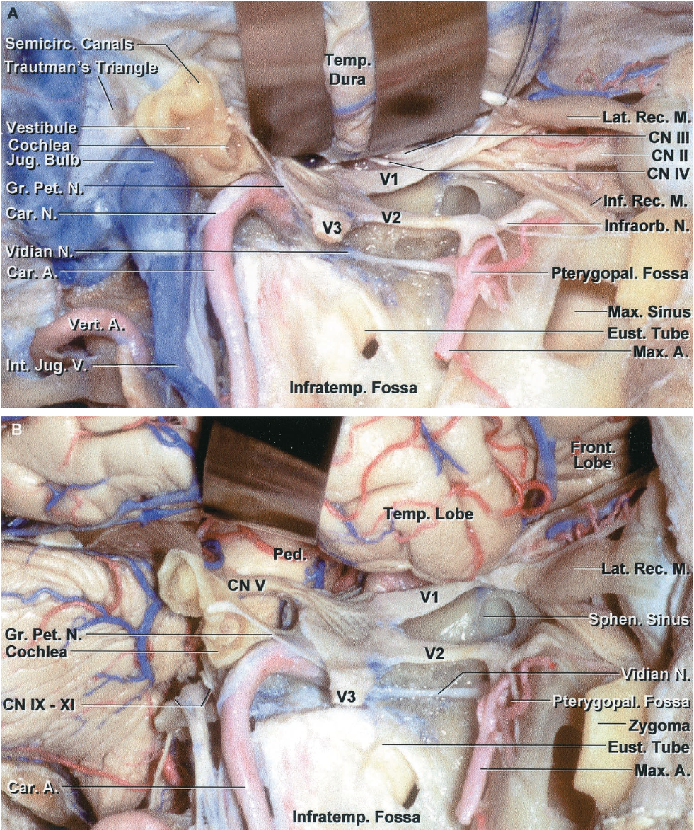 FIGURE 6.2. Lateral view of the anterior, middle, and posterior cranial base. A, the bone and structures lateral to the orbit, infratemporal, and pterygopalatine fossa, and the parapharyngeal space and petrous part of the temporal bone have been removed to expose the structures below the anterior, middle, and posterior cranial base. The orbit and maxillary sinus are located below the anterior cranial base. The infratemporal and pterygopalatine fossae and the parapharyngeal space are located below the middle cranial base, and the suboccipital area is located below the temporal and occipital bones. The first trigeminal division is related to the upper part of the orbit. The second trigeminal branch is related to the lower part of the orbit and maxilla. The mandibular nerve exits the cranium through the foramen ovale and enters the infratemporal fossa. The pterygoid and levator and tensor veli palatini muscles have been removed to expose the eustachian tube and its opening into the nasal pharynx. The lateral part of the temporal bone has been removed to expose the cochlea, vestibule, and semicircular canals. The petrous carotid passes upward and turns medially below the cochlea. The sigmoid sinus turns downward under the semicircular canals and vestibule where the jugular bulb is located. The segment of the vertebral artery passing behind the atlanto-occipital joint is located below the posterior cranial base. B, the dura has been opened to show the relationships of the frontal and temporal lobes and the cerebellum to the cranial base. The orbit is exposed below the frontal lobe. The pterygopalatine and infratemporal fossae and the temporal bone are located below the temporal lobe. The jugular bulb and internal jugular vein have been removed to show Cranial Nerves IX through XII exiting the jugular foramen. A., artery; Car., carotid; CN, cranial nerve; Eust., eustachian; Front., frontal; Gr., greater; Inf., inferior; Infraorb., infraorbital; Infratemp., infratemporal; Int., internal; Jug., jugular; Lat., lateral; M., muscle; Max., maxillary; N., nerve; Ped., peduncle; Pet., petrosal; Pterygopal., pterygopalatine; Rec., rectus; Semicirc., semicircular; Sphen., sphenoid; Temp., temporal; V., vein; Vert., vertebral.