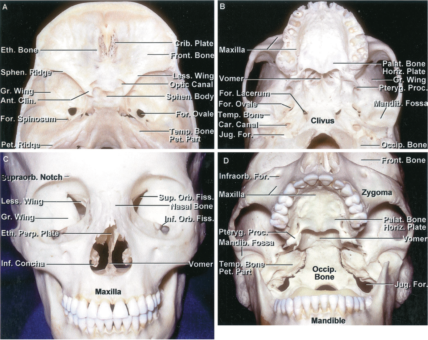 FIGURE 6.3. A-D. Osseous relationships of the anterior and middle cranial base. A, on the endocranial surface, the anterior and middle cranial base corresponds to the anterior and middle fossae. The anterior part of the cranial base is separated from the middle fossa by the sphenoid ridge and the chiasmatic sulcus. The middle cranial base is separated from the posterior cranial base by the dorsum sellae and the petrous ridges. The upper surface of the anterior cranial base is formed by the frontal bone, which roofs the orbit; the ethmoid bone, which is interposed between the frontal bones and is the site of the cribriform plate; and the lesser wing and anterior part of the body of the sphenoid, which forms the posterior part of the floor of the anterior fossa. The upper surface of the middle cranial base floor is formed by the greater sphenoid wing and posterior two-thirds of the sphenoid body anteriorly and the upper surface of the temporal bone posteriorly. The posterior part of the cranial base is formed by the temporal and occipital bones. The cribriform plate, sella, and clivus are located in the medial part of the cranial base. The lateral part of the cranial base is located above the orbits, pterygopalatine and infratemporal fossae, and the subtemporal and lateral part of the suboccipital areas. B, exocranial surface of the cranial base. This surface is more complicated than the endocranial surface. It is not demarcated into three well-defined fossae as is the endocranial surface. The exocranial surface is formed by the maxilla, the zygomatic, palatine, sphenoid, temporal, and occipital bones, and the vomer. The maxilla, orbits, and nasal cavity are located below the anterior fossa. The anterior part of the hard palate is formed by the maxilla and the posterior part is formed by the palatine bone. The anterior part of the zygomatic arch is formed by the zygoma and the posterior part by the squamosal part of the temporal bone. The mandibular fossa on the lower surface of the temporal squama is located below the posterior part of the middle fossa. The vomer attaches to the lower part of the body of the sphenoid and forms the posterior part of the nasal septum. C, anterior view. The orbital rim is formed by the frontal bone, zygoma, and maxilla. The roof of the orbit is formed by the frontal and sphenoid bones; the lateral wall by the greater sphenoid wing and the zygomatic bone; the floor by the maxilla, except for a small part of the posterior floor formed by the palatine bone; and the medial wall of the orbit by the maxilla and lacrimal and ethmoid bones. The nasal bone is interposed above the anterior nasal aperture between the maxillae. The nasal cavity is located between the ethmoid bones above and the maxillae, palatine bones, and sphenoid pterygoid process below. It is roofed by the frontal and ethmoid bones and the floor is formed by the maxillae and palatal bones. The osseous nasal septum is formed by the perpendicular ethmoid plate and the vomer. The inferior concha is a separate bone, and the middle and superior conchae are appendages of the ethmoid bone. The orbit opens through the superior orbital fissure into the middle fossa and through the inferior orbital fissure into the pterygopalatine and infratemporal fossae. D, anteroinferior view of the cranial base. The anterior part of the hard palate is formed by the maxillae and the posterior part is formed by the horizontal plate of the palatine bone. The vomer forms the posterior part of the nasal septum and divides the posterior nasal aperture in the midline. The infratemporal fossa is located below the greater sphenoid wing. The clivus is formed above by the body of the sphenoid bone and below by the basal part of the occipital bone. The petrous apex is interposed between the greater sphenoid wing and the clival part of the occipital bone. The mandibular condyles are set in the mandibular fossa, located below the posterior part of the middle fossa on the inferior surface of the squamosal part of the temporal bone.