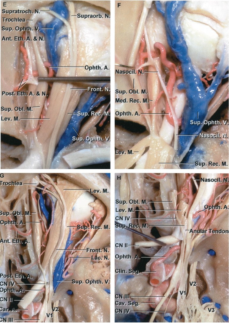 FIGURE 6.4. E-H. Anterior fossa, orbit, and perinasal sinuses. E, enlarged view. The superior oblique muscle has been retracted medially to expose the anterior and posterior ethmoidal branches of the ophthalmic artery and nasociliary nerve entering the anterior and posterior ethmoidal canal. The trochlea of the superior oblique muscle is attached to the superomedial margin of the orbit just behind the orbital rim. The frontal nerve divides into supraorbital and supratrochlear branches. F, the levator and superior rectus muscle have been retracted posteriorly to expose the nasociliary nerve, ophthalmic artery, and superior ophthalmic vein passing above the optic nerve. G, superior view of the anterior fossa in another specimen. The nasal cavity, sphenoid sinus, and orbit have been unroofed. The dura has been removed from the roof and lateral wall of the cavernous sinus. The medial strip below the anterior cranial base is formed, from anterior to posterior, by the frontal, ethmoidal, and sphenoid sinuses. The orbital fat has been removed to expose the intraorbital structures. The frontal nerve courses above the levator muscle. The trochlear nerve passes above the annular tendon to reach the superior oblique muscle. The trochlea of the superior oblique muscle is attached in the superomedial part of the anterior orbit. The lacrimal nerve courses above the lateral rectus muscle. The ophthalmic artery and superior ophthalmic vein are seen in the interval between the levator and superior oblique muscle. The anterior and posterior ethmoidal branches of the ophthalmic artery course through the anterior and posterior ethmoidal canals. H, enlarged view of cavernous sinus, superior orbital fissure, and orbital apex. The superior oblique, levator, and superior rectus muscles have been removed. The ophthalmic artery and nasociliary nerve enter the orbital apex on the lateral side of the optic nerve and cross between the optic nerve and superior rectus muscle to reach the medial part of the orbit. The optic nerve has been elevated to expose the ophthalmic artery, which courses through the optic canal on the lower side of the optic nerve and enters the orbital apex on the lateral side of the optic nerve. The ophthalmic artery then crosses medially between the optic nerve and superior rectus muscle, as does the nasociliary nerve. The maxillary nerve exits the foramen rotundum to enter the pterygopalatine fossa, and the mandibular nerve exits the foramen ovale to enter the infratemporal fossa. A., artery; A.C.A., anterior cerebral artery; Ant., anterior; Car., carotid; Cav., cavernous; Clin., clinoid; CN, cranial nerve; Crib., cribriform; Eth., ethmoid, ethmoidal; Front., frontal; Lac., lacrimal; Less., lesser; Lev., levator; M., muscle; M.C.A., middle cerebral artery; Med., medial; N., nerve; Nasocil., nasociliary; Obl., oblique; Olf., olfactory; Ophth., ophthalmic; Post., posterior; Rec., rectus; Seg., segment; Sphen., sphenoid; Sup., superior; Supraorb., supraorbital; Supratroch., supratrochlear; Tr., tract; V., vein.