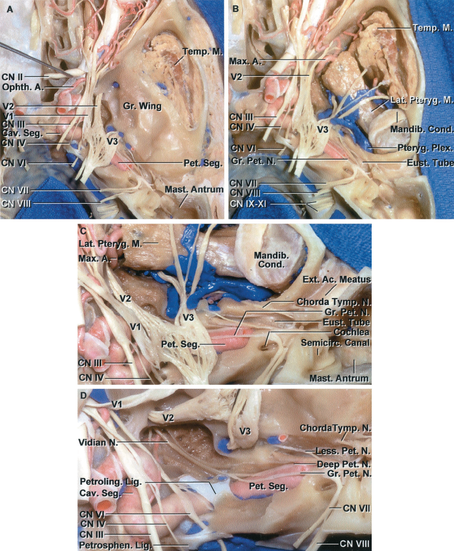 FIGURE 6.5. Superior view of middle cranial base. A, the floor of the middle fossa has been preserved. The anterior part of the floor of the middle fossa is formed by the greater sphenoid wing, which roofs the infratemporal fossa, and the posterior part of the floor is formed by the upper surface of the temporal bone. The internal acoustic meatus, mastoid antrum, and tympanic cavities have been unroofed. The dural roof and lateral wall of the cavernous sinus have been removed. The petrous segment of the internal carotid artery is exposed lateral to the trigeminal nerve. The temporalis muscle is exposed in the temporal fossa lateral to the greater sphenoid wing. B, the floor of the middle fossa has been removed to show the relationship below the floor. The temporalis muscle descends medial to the zygomatic arch in the temporal fossa to insert on the coronoid process of the mandible. The infratemporal fossa is located medial to the temporal fossa, below the greater sphenoid wing, and contains the pterygoid muscles and venous plexus and branches of the mandibular nerve and maxillary artery. The mandibular condyle is located below the posterior part of the middle fossa floor, which is formed by the temporal bone. C, enlarged view of the posterior part of the area below the middle fossa floor. The roof of the temporal bone, which forms the posterior part of the floor of the middle fossa, has been opened to expose the mastoid antrum, eustachian tube, semicircular canals, cochlea, the nerves in the internal acoustic meatus, and the mandibular condyle. D, the trigeminal nerve has been reflected forward. The abducens nerve passes below the petrosphenoid ligament and through Dorello's canal. The petrous segment of the carotid passes below the petrolingual ligament to enter the cavernous sinus. The greater petrosal nerve is joined by the deep petrosal branch of the carotid sympathetic plexus to form the vidian nerve, which passes forward in the vidian canal, which has been unroofed. The lesser petrosal nerve arises from the tympanic branch of the glossopharyngeal nerve, which passes across the promontory in the tympanic nerve plexus and regroups to cross the floor of the middle fossa, exiting the cranium to provide parasympathetic innervation through the otic ganglion to the parotid gland. The tensor tympani muscle and eustachian are layered, with the former above the latter, along and separated from the anterior surface of the petrous carotid by a thin layer of bone. A., artery; Ac., acoustic; Cav., cavernous; CN, cranial nerve; Cond., condyle; Eust., eustachian; Ext., external; Gr., greater; Lat., lateral; Less., lesser; Lig., ligament; M., muscle; Mandib., mandibular; Mast., mastoid; Max., maxillary; N., nerve; Ophth., ophthalmic; Pet., petrosal; Petroling., petrolingual; Petrosphen., petrosphenoid; Plex., plexus; Pteryg., pterygoid; Seg., segment; Semicirc., semicircular; Temp., temporalis; Tymp., tympani.