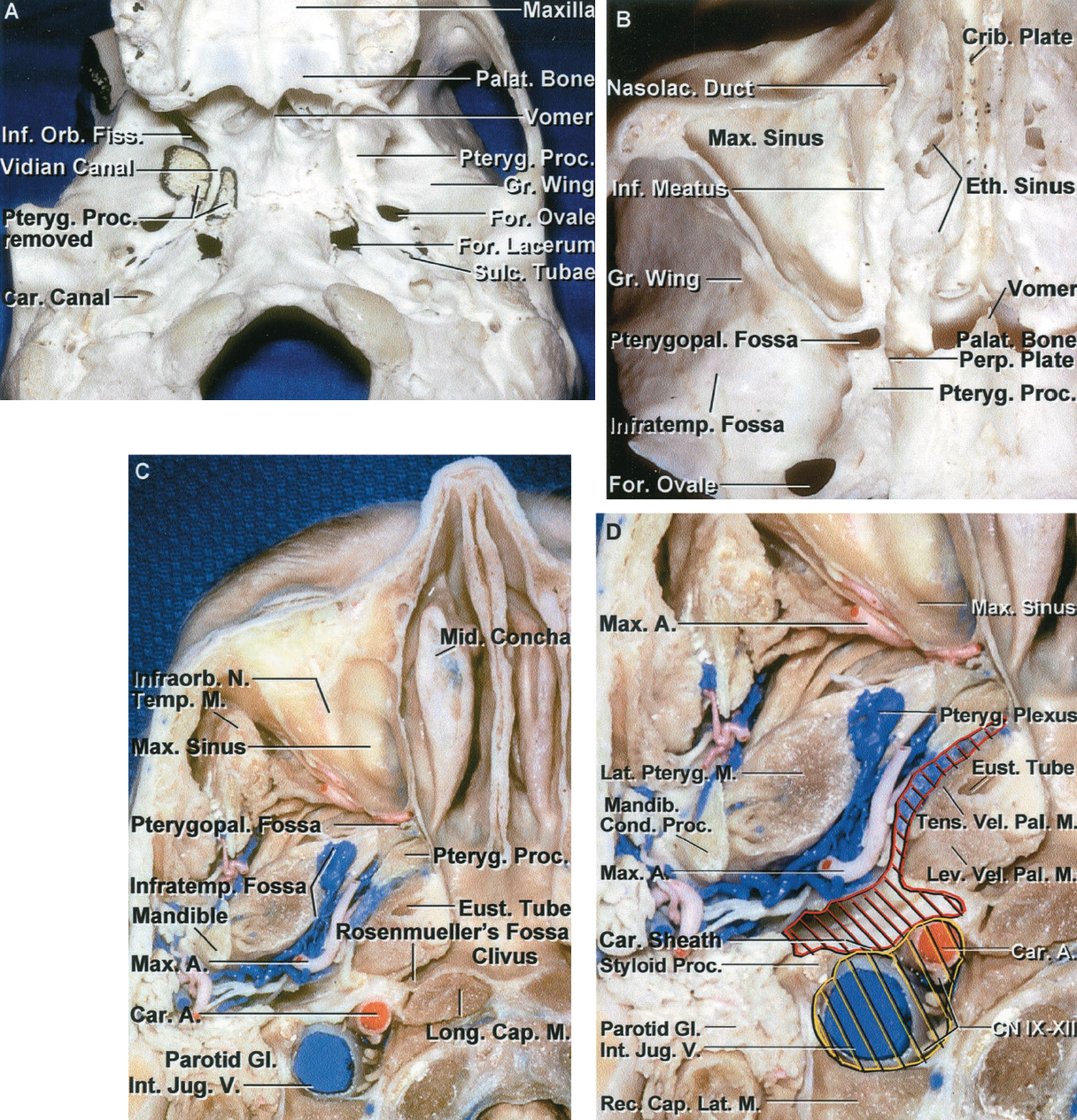 FIGURE 6.6. A-D. A, inferior view of cranial base. The right pterygoid process has been sectioned and removed at its junction with the greater wing and body of the sphenoid bone to expose the pterygopalatine fossa and the vidian canal. The vidian nerve, formed by the union of the superficial and deep petrosal nerves, courses in the vidian canal, which passes through the root of the pterygoid process. It opens posteriorly at the anterolateral margin of the foramen lacerum and anteriorly into the medial portion of the pterygopalatine fossa. The sulcus tubae, which is the attachment site of the cartilaginous part of the eustachian tube to the cranial base, is located on the extracranial surface of the sphenopetrosal fissure, anterolateral to the foramen lacerum and the carotid canal, and posteromedial to the foramina ovale and spinosum. The lateral part of the inferior orbital fissure opens into the infratemporal fossa located below the greater sphenoid wing, and the medial part opens into the pterygopalatine fossa located below the orbital apex between the maxilla and pterygoid process. The right zygomatic arch has been removed. B, inferior view of an axial section of a cranium at the level of the maxillary sinus. The pterygopalatine fossa is located between the posterior wall of the maxillary sinus and the pterygoid process. The roof of the maxillary sinus forms the floor of the orbit. The infratemporal fossa is located below the greater wing of the sphenoid and opens medially into the pterygopalatine fossa. The medial wall of the pterygopalatine fossa is formed by the perpendicular plate of the palatine bone, which has an opening, the sphenopalatine foramen, through which branches of the maxillary artery and nerve reach the nasal cavity. The ethmoid air cells are located medial to the orbit. C, inferior views of an axial section of the cranial base. The infratemporal fossa is surrounded by the maxillary sinus anteriorly, the mandible laterally, the pterygoid process anteromedially, and the parapharyngeal space posteromedially. It contains the mandibular nerve and maxillary artery and their branches, the medial and lateral pterygoid muscles, and the pterygoid venous plexus. The posterior nasopharyngeal wall is separated from the lower clivus by the longus capitis, and the nasopharyngeal roof rests against the upper clivus and floor of the sphenoid sinus. D, enlarged view with highlighting of the pre- (red) and poststyloid (yellow) compartments of the parapharyngeal space. The styloid diaphragm, formed by the anterior part of the carotid sheath, separates the parapharyngeal space into pre- and poststyloid parts. The prestyloid compartment, a narrow fat-containing space between the medial pterygoid and tensor veli palatini muscle, separates the infratemporal fossa from the medially located lateral nasopharyngeal region containing the tensor and levator veli palatini and the eustachian tube. The poststyloid compartment, located behind the prestyloid part, contains the internal carotid artery, internal jugular vein, and the Cranial Nerves IX through XII.