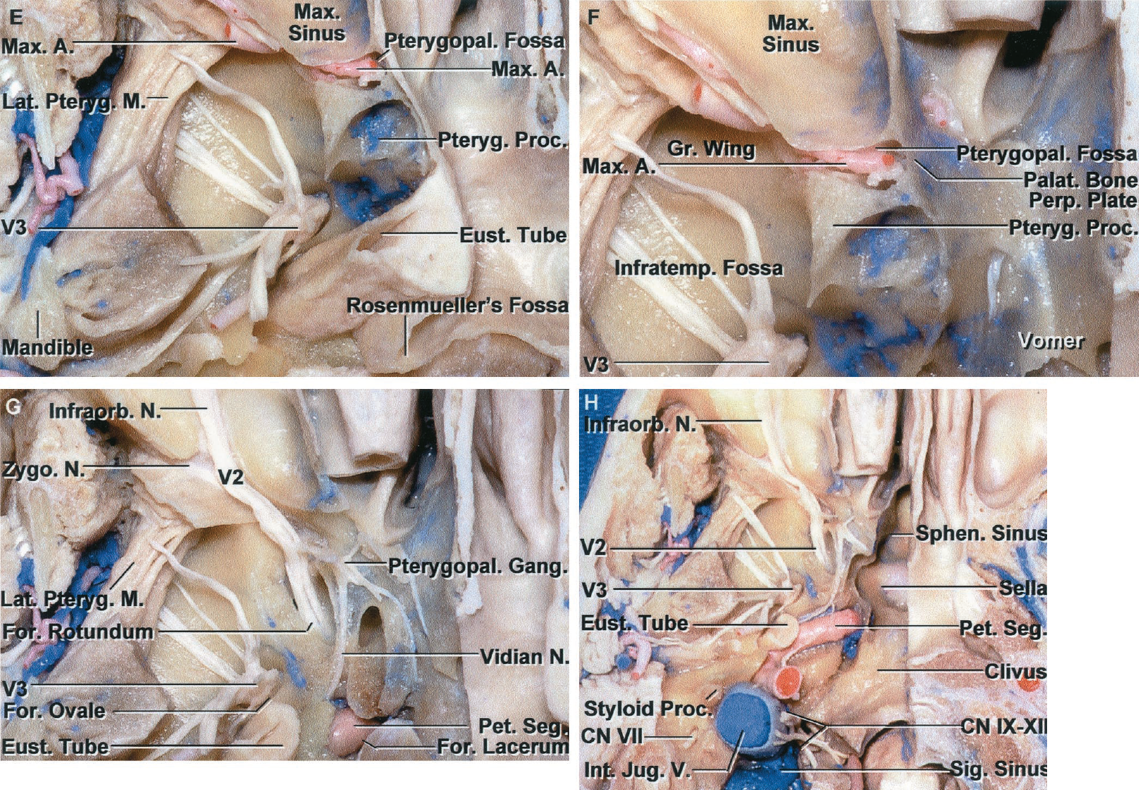 FIGURE 6.6. E-H. E, some of the lateral pterygoid muscle has been removed to expose the branches of the mandibular nerve in the infratemporal fossa. The lower part of the pterygoid process has been removed to expose the maxillary artery in the pterygopalatine fossa. The pharyngeal recess (fossa of Rosenmüller) projects laterally from the posterolateral corner of the nasopharynx below the foramen lacerum. F, enlarged view. The pterygopalatine fossa is located between the posterior maxillary wall anteriorly, the sphenoid pterygoid process posteriorly, the perpendicular plate of the palatine bone medially, and the infratemporal fossa laterally. The medial part of the eustachian tube has been removed. G, the pterygoid process has been removed to expose the maxillary nerve passing through the foramen rotundum to enter the pterygopalatine fossa, where it gives rise to the infraorbital and zygomatic nerves and communicating rami to the pterygopalatine ganglion. The vidian nerve exits the vidian canal and joins the pterygopalatine ganglion. The terminal part of the petrous carotid is exposed above the foramen lacerum. H, enlarged view of the region of the carotid canal and jugular foramen. The bone below the carotid canal has been removed to expose the petrous carotid. The deep portion of the parotid gland has been removed to expose the facial nerve at the styloid foramen. The sigmoid sinus hooks downward from the posterior fossa and opens into the internal jugular vein. A portion of the occipital condyle has been removed to expose the hypoglossal nerve joining the nerves exiting the jugular foramen to pass downward in the carotid sheath. The styloid process and facial nerve at the stylomastoid foramen are located on the lateral side of the internal jugular vein. The right half of the floor of the sphenoid sinus has been removed to expose the sella. A., artery; Cap., capitis; Car., carotid; CN, cranial nerve; Cond., condylar; Crib., cribriform; Eth., ethmoid; Eust., eustach