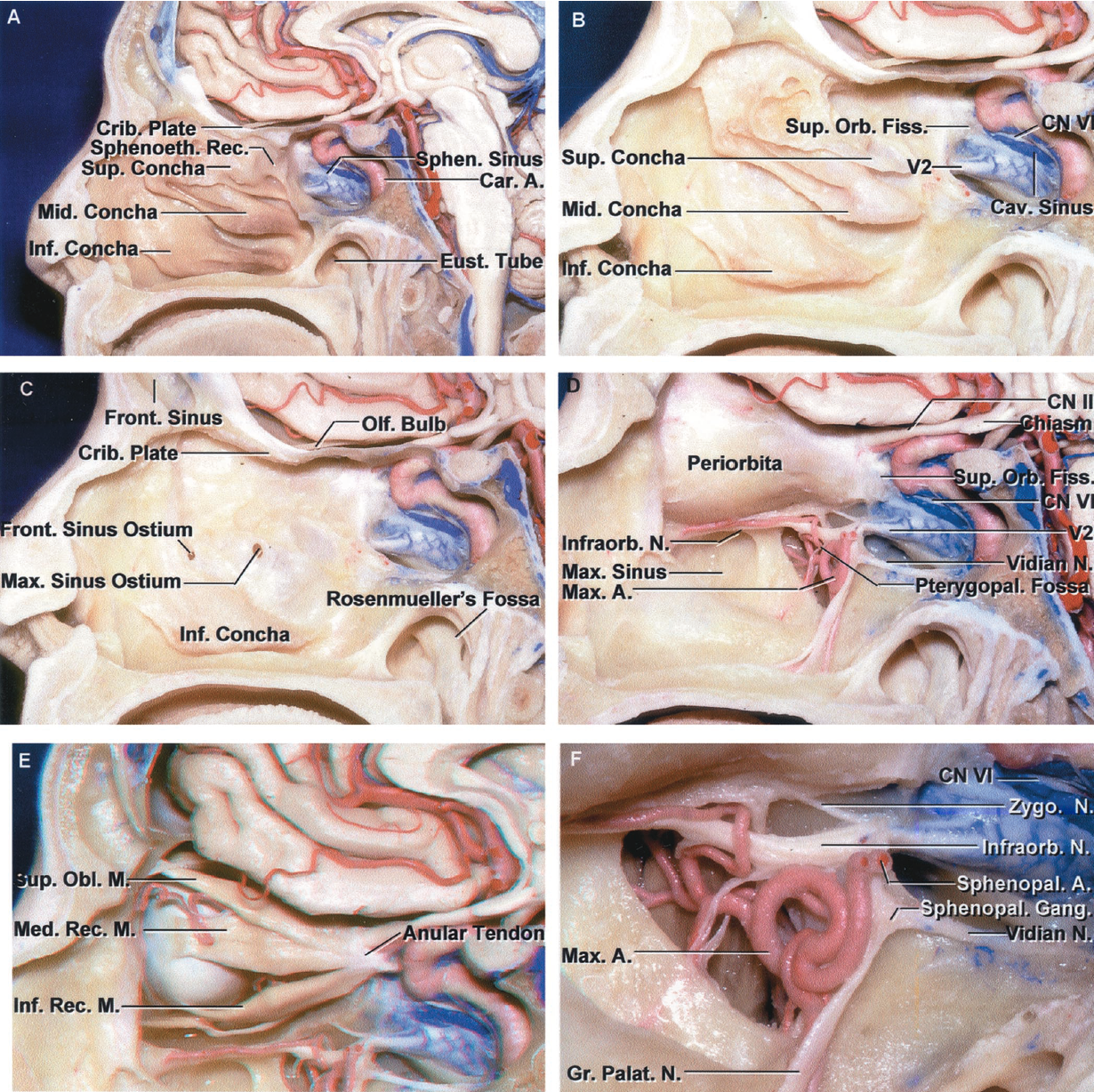 FIGURE 6.8. Structures below the medial part of the anterior and middle cranial fossae. A, midsagittal section of the anterior and middle cranial base to the right of the nasal septum. The area below the medial part of the anterior cranial fossa is formed by the frontal and ethmoidal sinuses and the nasal cavity. The nasal cavity is divided into the inferior, middle, and superior meatus and the sphenoethmoidal recess by the inferior, middle, and superior cochlea. The inferior meatus is located below the inferior turbinate, and the sphenoethmoidal recess, into which the sphenoid sinus opens, is located above the superior turbinate. The central part of the middle cranial base is formed by the body of the sphenoid bone, which contains the sphenoid sinus and sella with the pituitary gland. The cribriform plate is located in the roof of the nasal cavity. The nasopharynx and the opening of the eustachian tube are located below the sphenoid sinus. B, some of the mucosa has been removed from the concha. The inferior concha is a separate bone attached to the maxilla. The middle and superior concha are appendages of the ethmoid bone. The carotid artery courses along the lateral margin of the sphenoid sinus. The prominence within the sphenoid sinus, formed by the superior orbital fissure, is located anterior to the intracavernous carotid, and the prominence overlying the maxillary nerve is located below the intracavernous carotid. C, the middle and superior turbinates have been removed to expose the ostia of the maxillary and frontal sinuses. Both open into the middle meatus below the middle turbinate. The nasolacrimal duct opens below the inferior concha. Rosenmüller's fossa is located behind the eustachian tube. D, the medial wall of the maxillary sinus and the ethmoid air cells have been removed to expose the orbit. The optic nerve enters the orbit above the superior orbital fissure. The maxillary nerve exits the foramen rotundum to enter the pterygopalatine fossa. The vidian nerve passes through the vidian canal and enters the posterior margin of the sphenopalatine ganglion in the pterygopalatine fossa. The floor of the anterior cranial fossa forms much of the roof of the orbit, and the maxillary sinus forms most of the floor of the orbit. The abducens nerve is seen below the intracavernous segment of the internal carotid artery. The pterygopalatine fossa is located anterior to the sphenoid sinus and below the orbital apex. E, the intraorbital fat has been removed to expose the superior oblique and medial and inferior rectus muscles. F, enlarged view of the pterygopalatine fossa. The maxillary nerve exits the foramen rotundum to enter the pterygopalatine fossa, where it gives rise to the infraorbital, zygomatic, and palatine nerves and communicating rami to the pterygopalatine ganglion. The vidian nerve exits the vidian canal to enter the pterygopalatine ganglion. The pterygopalatine fossa contains branches of the maxillary nerve, the junction of the vidian nerve with the pterygopalatine ganglion, and terminal branches of the maxillary artery. A., artery; Car., carotid; Cav., cavernous; CN, cranial nerve; Crib., cribriform; Eust., eustachian; Fiss., fissure; Front., frontal; Gang., ganglion; Gr., greater; Inf., inferior; Infraorb., infraorbital; M., muscle; Max., maxillary; Med., medial; Mid., middle; N., nerve; Obl., oblique; Olf., olfactory; Orb., orbital; Palat., palatine; Pterygopal., pterygopalatine; Rec., recess, rectus; Sphen., sphenoid; Sphenoeth., sphenoethmoid; Sphenopal., sphenopalatine; Sup., superior; Zygo., zygomatic.
