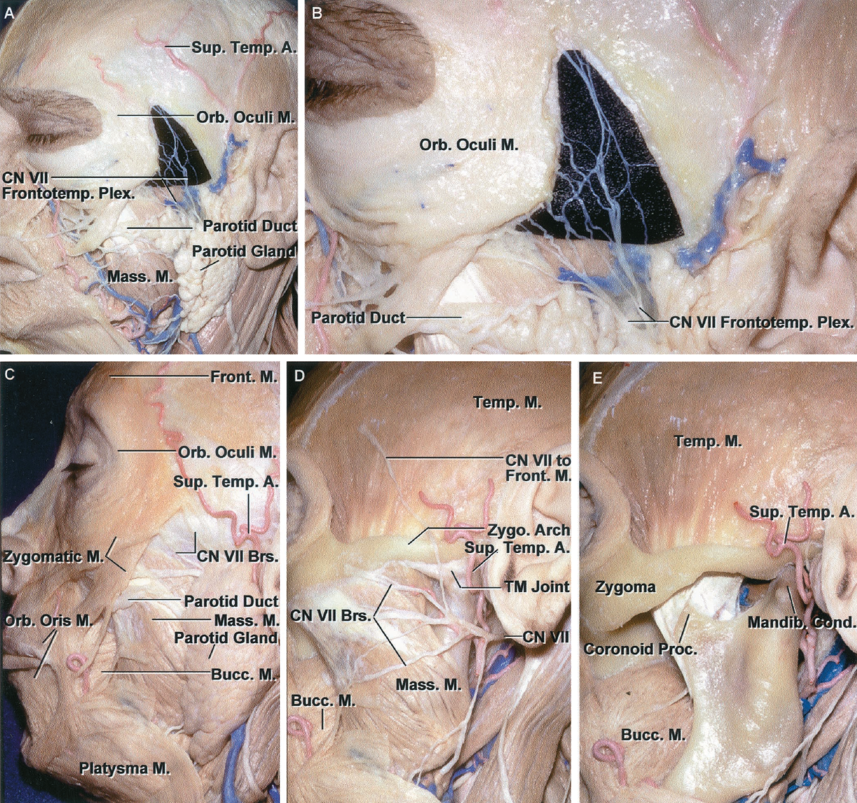 FIGURE 6.9. A-E. A, the branches of the facial nerve, which form a fine plexus in the fat pad overlying the temporalis fascia and are directed to the orbicularis oculi and frontalis muscle, have been dissected free and a small piece of black material placed deep to their fine branches to highlight this neural network in the fat pad. B, enlarged view of the facial nerve plexus innervating the orbicularis oculi and frontalis muscle. C, lateral view of the structures superficial to the anterior and middle cranial base. The frontotemporal and zygomatic branches of the facial nerve are exposed anterior to the parotid gland. The orbicularis oculi surrounds the orbit, and the frontalis muscle extends upward from the superior orbital rim. The levators of the lip and zygomaticus muscles are located in front of the maxilla. The orbicularis oris surrounds the mouth and the buccinator muscle surrounds the oral cavity deep to the masseter muscle. The parotid duct crosses the masseter muscle. The superficial temporal artery divides into anterior and posterior branches. The parotid gland has been removed to show the branches of the facial nerve. D, the parotid gland has been removed to expose the facial nerve exiting the stylomastoid foramen. The facial nerve branch to the frontalis muscle has been preserved in the dissection and has been laid back against the temporalis muscle to show it crossing the zygomatic arch in its course to the forehead. The superficial temporal artery passes deep to the facial nerve in front of the ear. E, the masseter muscle has been removed to expose the temporalis muscle inserting on the coronoid process. The buccinator muscle, which surrounds the oral cavity, is situated on the deep side of the masseter muscle.
