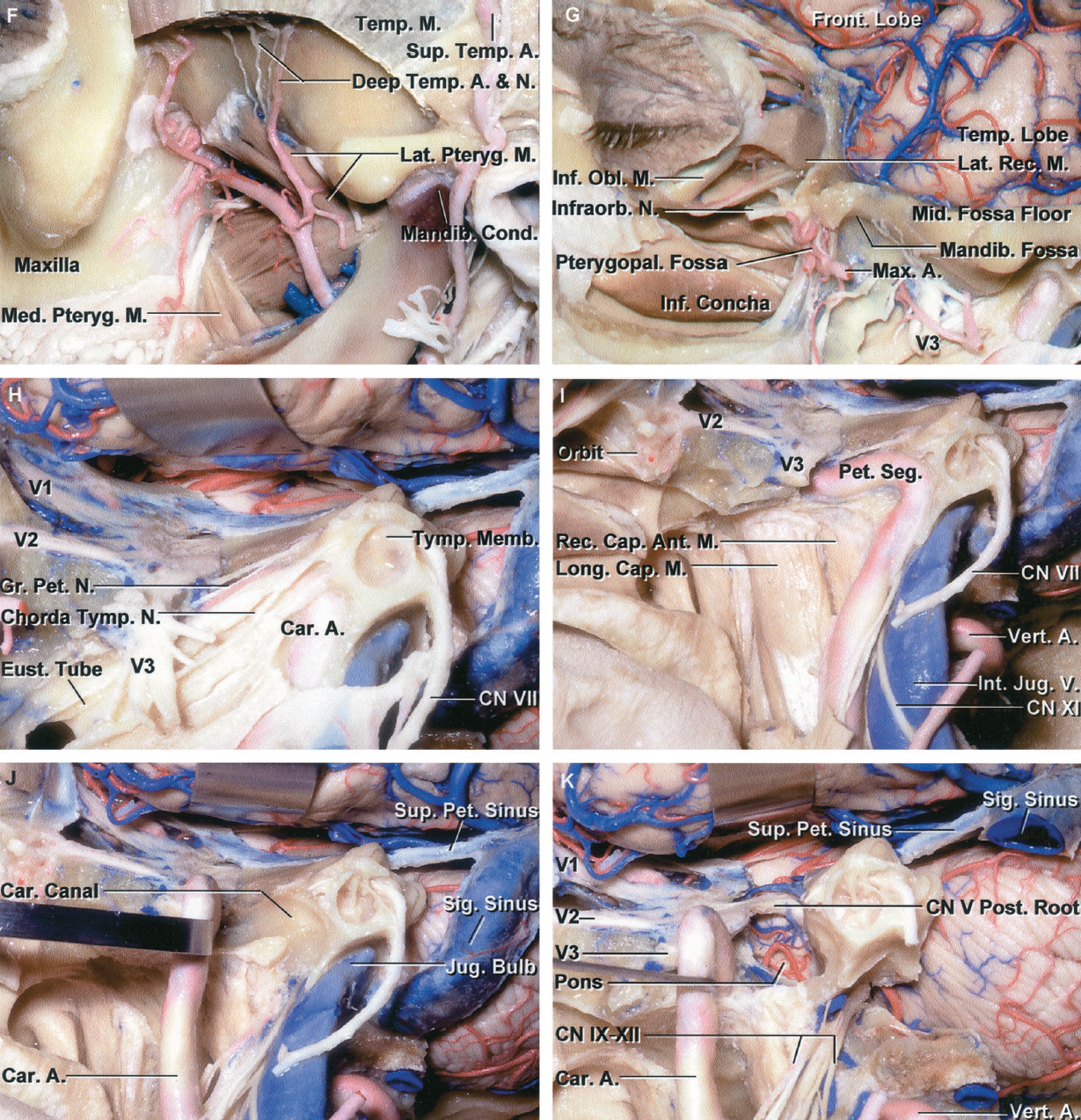 FIGURE 6.9. F-K. F, the coronoid process and lower part of the temporalis muscle have been removed to expose the deep temporal branches of both the maxillary artery and mandibular nerve passing upward along the greater sphenoid wing and temporal squama to enter the deep side of the temporalis muscle. The lateral pterygoid muscles extend backward from the pterygoid process and greater wing of the sphenoid to insert along the mandibular condyle and temporomandibular joint. G, a craniotomy has been performed to expose the floor of the middle fossa, and the lateral wall of the orbital has been removed to expose the extraocular muscles. The mandibular condyle has been removed and the pterygoid muscles reflected to expose the mandibular nerve at the foramen ovale. The pterygopalatine fossa is located behind the maxilla. The floor of the orbit and the upper part of the maxilla have been removed to expose the nasal cavity. H, enlarged view after resection of the floor of the middle fossa and the external auditory canal to expose the tympanic membrane and the mandibular nerve below the foramen ovale. The mastoid segment of the facial nerve has been preserved. The greater petrosal nerve crosses above the petrous carotid. The tensor tympani muscle and eustachian tube are layered along the anterior margin of the petrous carotid. I, the eustachian tube and tensor tympani have been resected to expose the upper cervical and petrous carotid. The nasopharyngeal mucosa has been opened to expose the longus capitis and rectus capitis anterior muscles. J, the carotid artery has been reflected forward out of the carotid canal. This exposes the petrous apex in front of the jugular foramen on the medial side of the internal carotid artery. K, the petrous apex has been drilled and the dura opened below the trigeminal nerve to expose the upper anterior part of the posterior cranial fossa. A segment of the internal jugular vein and jugular bulb have been resected to expose the IXth through XI