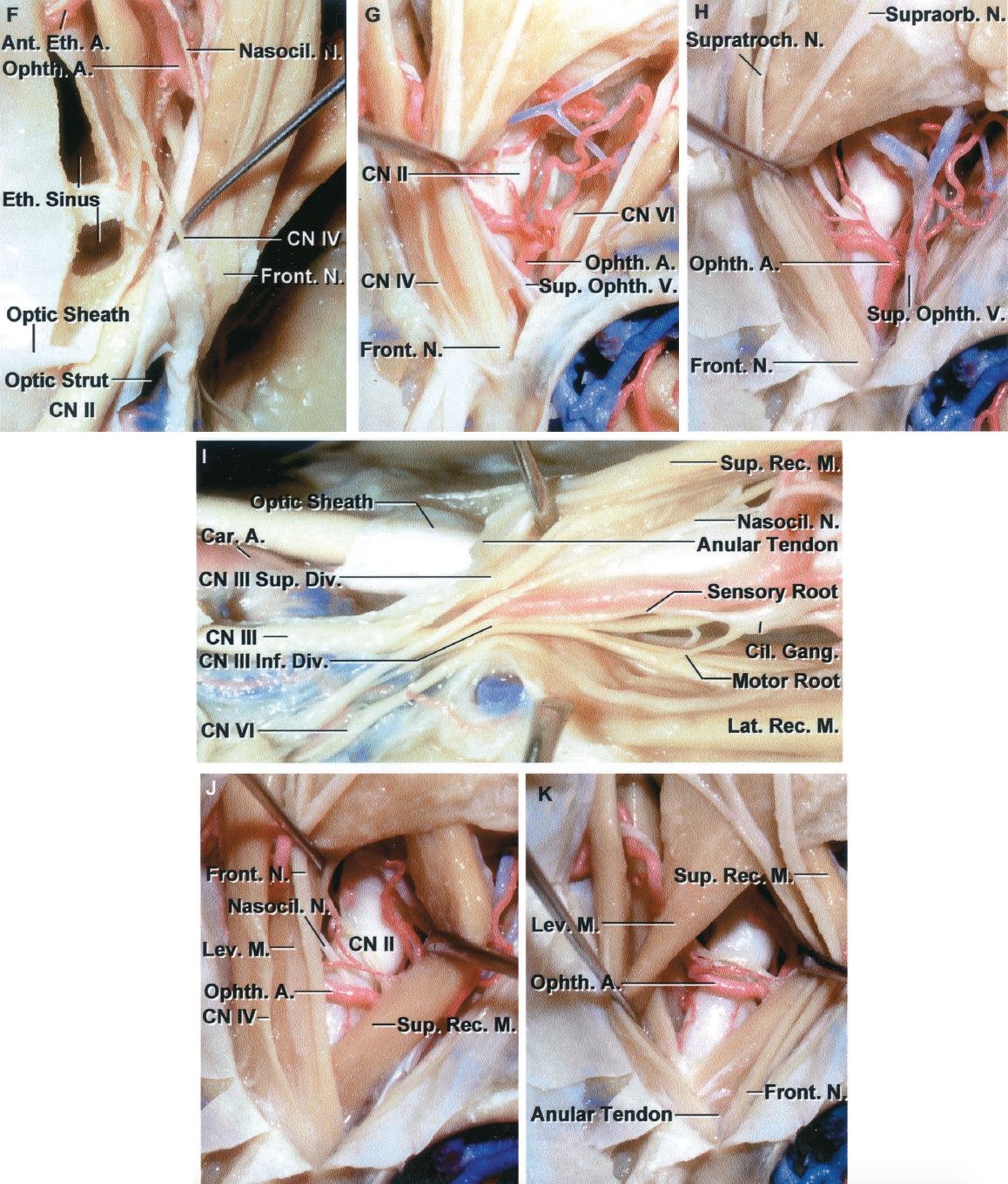 FIGURE 7.10. F-K. Orbitofrontal craniotomy in which the supraorbital rim and the anterior part of the orbital roof are elevated with the frontal bone flap. F, an incision has been extended backward through the annular tendon between the superior and medial rectus muscles and through the optic sheath to expose the full length of the optic nerve. The trochlear nerve passes above the levator muscle at the orbital apex in its passage to the superior oblique muscle and should be protected in completing the incision through the annular tendon and along the optic sheath. This type of incision in the annular tendon can be combined with the medial supraorbital approach to provide access to the optic nerve from the optic chiasm to the globe. The sphenoid and ethmoidal sinuses are exposed on the medial side of the orbit. G and H, lateral route to the intraconal and apical area. The lateral route to the optic nerve is directed through the interval between the levator and superior rectus muscle medially and the lateral rectus muscle laterally. This route is often selected for lesions that involve the area lateral to the optic nerve or those extending through the superior orbital fissure. G, the levator and superior rectus muscles and the superior ophthalmic vein have been retracted medially to expose the intraorbital part of the optic nerve. The superior ophthalmic vein blocks the view of the deep apical area. H, the superior ophthalmic vein has been displaced laterally to expose the deep apical area. It blocks the view of the apical area, as shown in G, when it is retracted medially. I, the annular tendon has been divided between the origin of the lateral and superior rectus muscles, as can be performed in the lateral approach. The origin of the superior rectus muscle from the annular tendon has been retracted medially and the origin of the lateral rectus muscle has been retracted laterally. This incision can be combined with a lateral supraorbital approach to increase access t