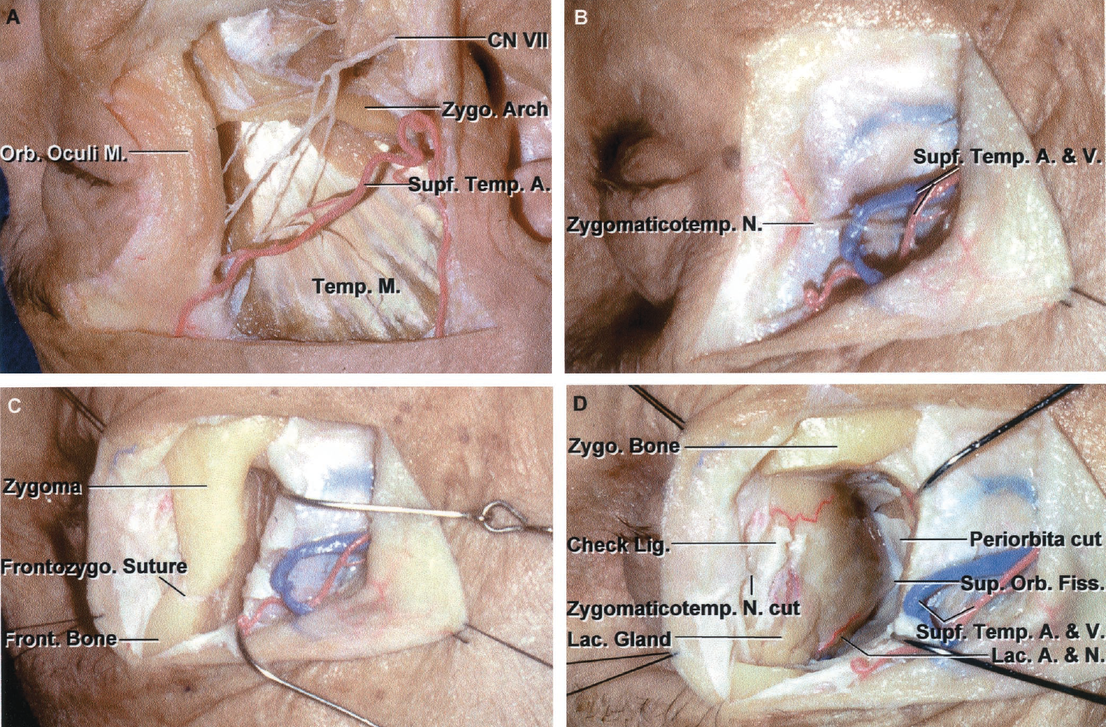FIGURE 7.11. A-D. Lateral orbital approach. A, structures superficial to the lateral orbital wall include the branches of the facial nerve to the orbicularis oculi and frontalis muscles, which cross the midportion of the zygomatic arch; the anterior branch of the superficial temporal artery; and the temporalis muscle, which passes medial to the zygomatic arch to insert on the coronoid process of the mandible. B–E, exposure obtained with a lateral orbitotomy. B, the curved skin incision begins in front of the ear, extends forward along the upper edge of the zygoma, and turns upward along the lateral rim of the orbit. The superficial temporal artery and vein are exposed. A zygomaticotemporal nerve branch of the maxillary nerve passes through the lateral orbital wall to convey sensation to the temple. Care is required to preserve the branches of the facial nerve to the orbicularis oculi and frontalis muscles and, if transected, reapproximation should be attempted at the end of the operation. C, the lateral orbital rim formed by the frontal process of the zygomatic bone and the zygomatic process of the frontal bone has been exposed. The temporalis muscle has been elevated from the lateral orbital wall. D, the part of the lateral wall of the orbit formed by the frontal and zygomatic bones and the adjacent part of the sphenoid wings has been elevated as a small bone flap to expose the periorbita of the anterior two-thirds of the orbital wall. The lacrimal artery and nerve course in the orbital fat above the lateral rectus muscle. The orbital part of the lacrimal gland is exposed outside the orbital fat. The lateral orbital rim, which has been removed in a single piece, is replaced after removing the orbital lesion.