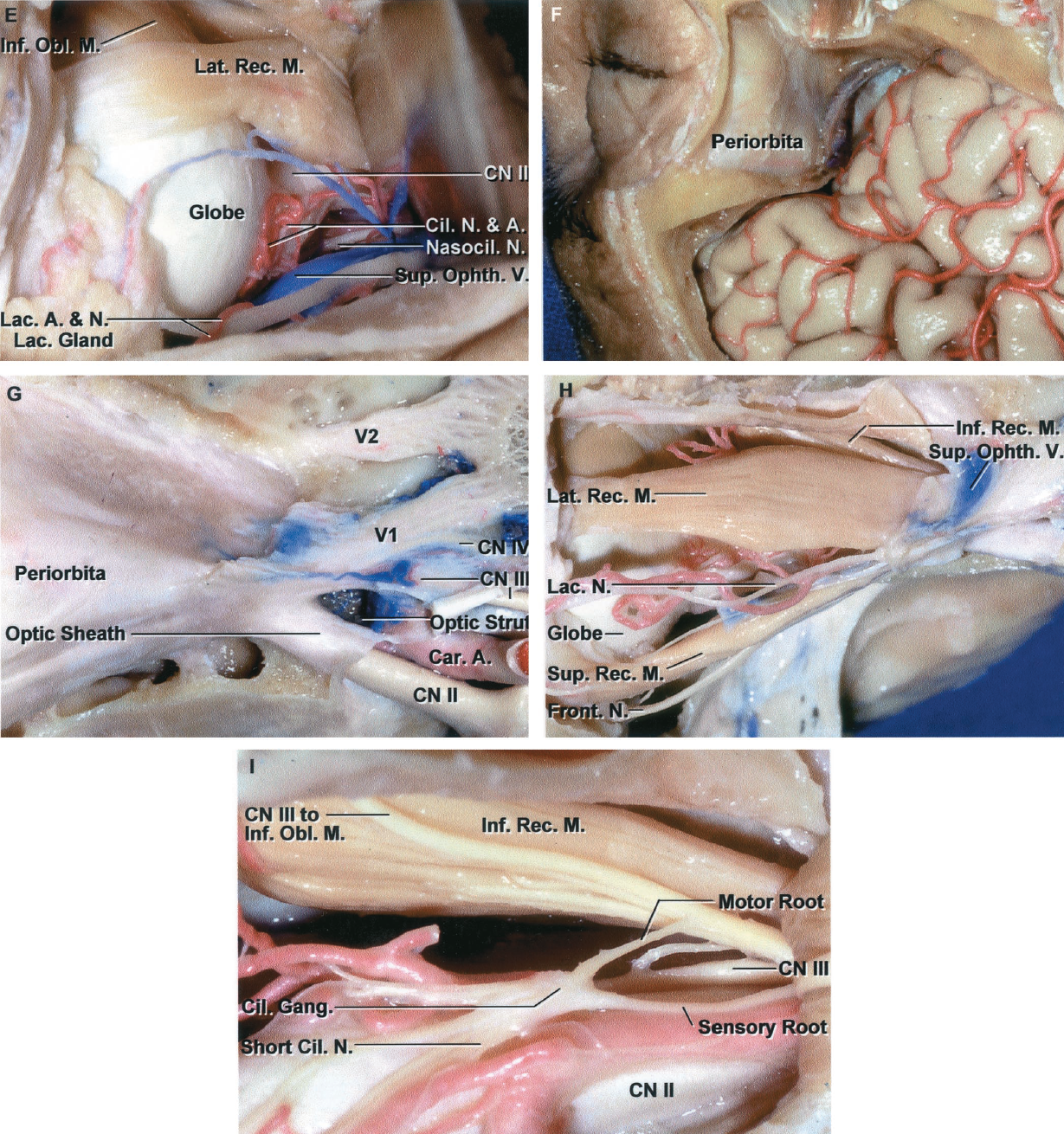FIGURE 7.11. E-I. Lateral orbital approach. E, the orbital fat has been removed to expose the optic nerve and insertion of the lateral rectus and inferior oblique muscles on the globe. The superior ophthalmic vein, the nasociliary nerve, and the lacrimal and ciliary arteries and nerves are exposed above the lateral rectus muscle. F, combining the lateral orbital exposure with a frontotemporal craniotomy permits exposure of the superior orbital fissure, anterior cavernous sinus, and the frontal and temporal lobes adjoining the sylvian fissure. The lateral orbital wall has been removed to expose the periorbita. G, the combined craniotomy and lateral orbitotomy exposures include the anterior part of cavernous sinus, the superior orbital fissure, and the lateral orbit. The anterior clinoid process and a portion of the optic strut have been removed. The bone around the optic canal has been removed to expose the optic sheath. H, the periorbita has been opened to expose the lateral rectus muscle. The lacrimal and frontal nerves course through the lateral part of the superior orbital fissure. The superior ophthalmic vein courses along the lateral margin of the annular tendon. I, the lateral rectus muscle has been reflected posteriorly. The ciliary ganglion is located on the lateral side of the ophthalmic artery and optic nerves. The abducens nerve enters the medial side of the lateral rectus muscle. The motor root of the ciliary ganglion arises from the branch of the inferior oculomotor division to the inferior oblique muscle. The sensory root of the ciliary ganglion arises from the nasociliary. The ciliary ganglion gives rise to short ciliary nerves. A., artery; Car., carotid; Cil., ciliary; CN, cranial nerve; Fiss., fissure; Front., frontal; Frontozygo., frontozygomatic; Gang., ganglion; Inf., inferior; Lac., lacrimal; Lat., lateral; Lig., ligament; M., muscle; N., nerve; Nasocil., nasociliary; Obl., oblique; Ophth., ophthalmic; Orb., orbital; Rec., rectus; Sup., superior