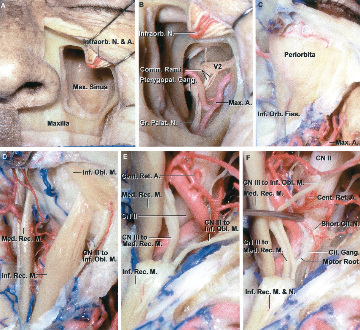 FIGURE 7.12. Transmaxillary exposure of the orbit. A, this approach is usually performed through a degloving incision in the buccogingival junction rather than through an incision along the margin of the nose. The upper lip and cheek flap have been reflected laterally and the anterior wall of the maxilla has been opened to expose the maxillary sinus. B, enlarged view. The posterior wall of the maxillary sinus has been removed to expose the pterygopalatine fossa. The maxillary nerve enters the pterygopalatine fossa by passing through the foramen rotundum, where it gives rise to communicating rami to the pterygopalatine ganglion and infraorbital and palatine nerves. The terminal branches of the maxillary artery also course through the pterygopalatine fossa. C, inferior view of another orbit after the orbital floor has been removed and the infraorbital nerve reflected posteriorly to expose the periorbita and orbital fat. D, the orbital fat has been removed to expose the medial and inferior rectus and inferior oblique muscles. The inferior oblique muscle arises from the medial orbital wall and passes laterally below the inferior rectus muscle to insert on the sclera. The branch of the inferior division of the oculomotor nerve to the inferior oblique muscle courses along the lateral side of the inferior rectus muscle. E,the inferior rectus muscle has been divided and reflected backward. The ophthalmic artery, in this case, courses below the optic nerve, as occurs in approximately 15% of orbits. The inferior division of the oculomotor nerve gives rise to individual branches to the medial rectus, inferior oblique, and inferior rectus muscles. A tortuous central retinal artery arises below and enters the lower margin of the optic nerve. F, the ophthalmic artery has been retracted medially to expose the origin of the parasympathetic motor root to the ciliary ganglion, which courses from the branch of the inferior oculomotor division to the inferior oblique. The ganglion give