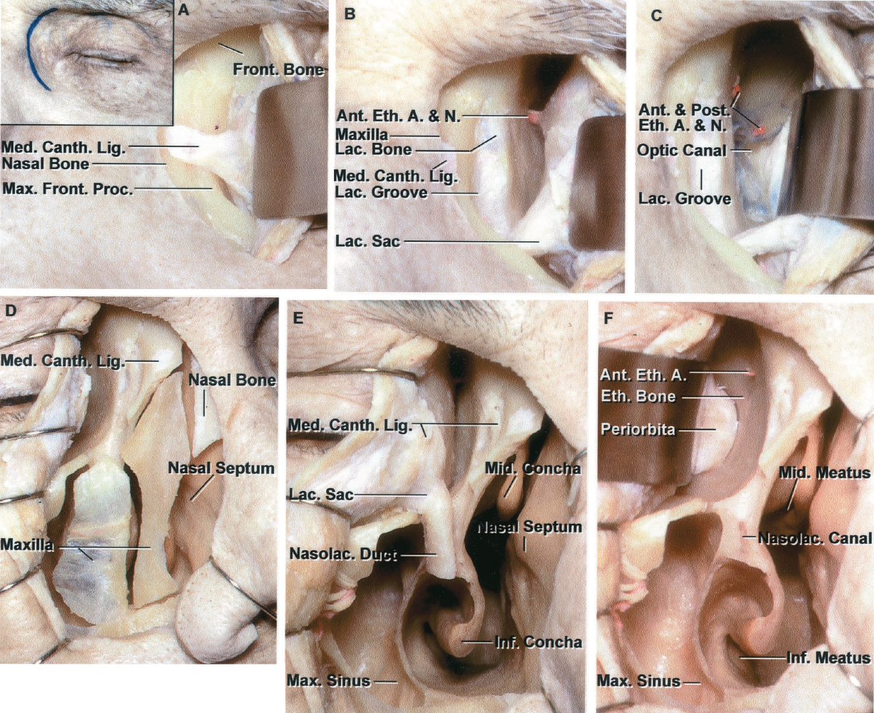 FIGURE 7.13. Medial orbital approach. A–C, medial orbital exposure. A, the medial orbital incision on the left side is shown in the inset. The approach exposes the medial orbital wall, ethmoid air cells, and sphenoid sinus back to the level of the optic canal. The periorbita has been elevated from the frontal process of the maxillary bone and adjacent frontal bone forming the medial part of the orbital rim to expose the medial canthal ligament, which, if divided, should be reapproximated at the end of the procedure to maintain canthal balance. B, the medial palpebral ligament has been divided and the edges of the divided ligament have been preserved for re-approximation at the end of the procedure. The lacrimal sac has been retracted laterally. The exposure extends backward along the lacrimal and ethmoid bones to the level where the anterior ethmoidal artery enters the anterior ethmoidal canal. The lacrimal groove, in which the lacrimal sac sits, is formed anteriorly by the maxilla and posteriorly by the lacrimal bone. C, the exposure has been extended backward along the ethmoid, lacrimal, and frontal bones, past the level where the anterior and posterior ethmoidal arteries enter the anterior and posterior ethmoidal canal to the orbital apex and anterior end of the optic canal. The medial ethmoid air cells and adjacent part of the sphenoid sinus can be removed to expose the optic nerve in the optic canal. This approach is sometimes used to decompress the optic canal. D–F, combined medial orbital and maxillary exposures. D, the exposure includes not only the medial orbital wall, but also the adjacent part of the floor. Two small maxillary osteotomies have been completed. The medial one includes the part of the maxilla forming the anterior wall of the nasal cavity. The lateral osteotomy exposes the anterior part of the maxillary sinus. The medial palpebral ligament has been divided to expose the medial wall of the orbit. E, removing the medial osteotomy fragment expos