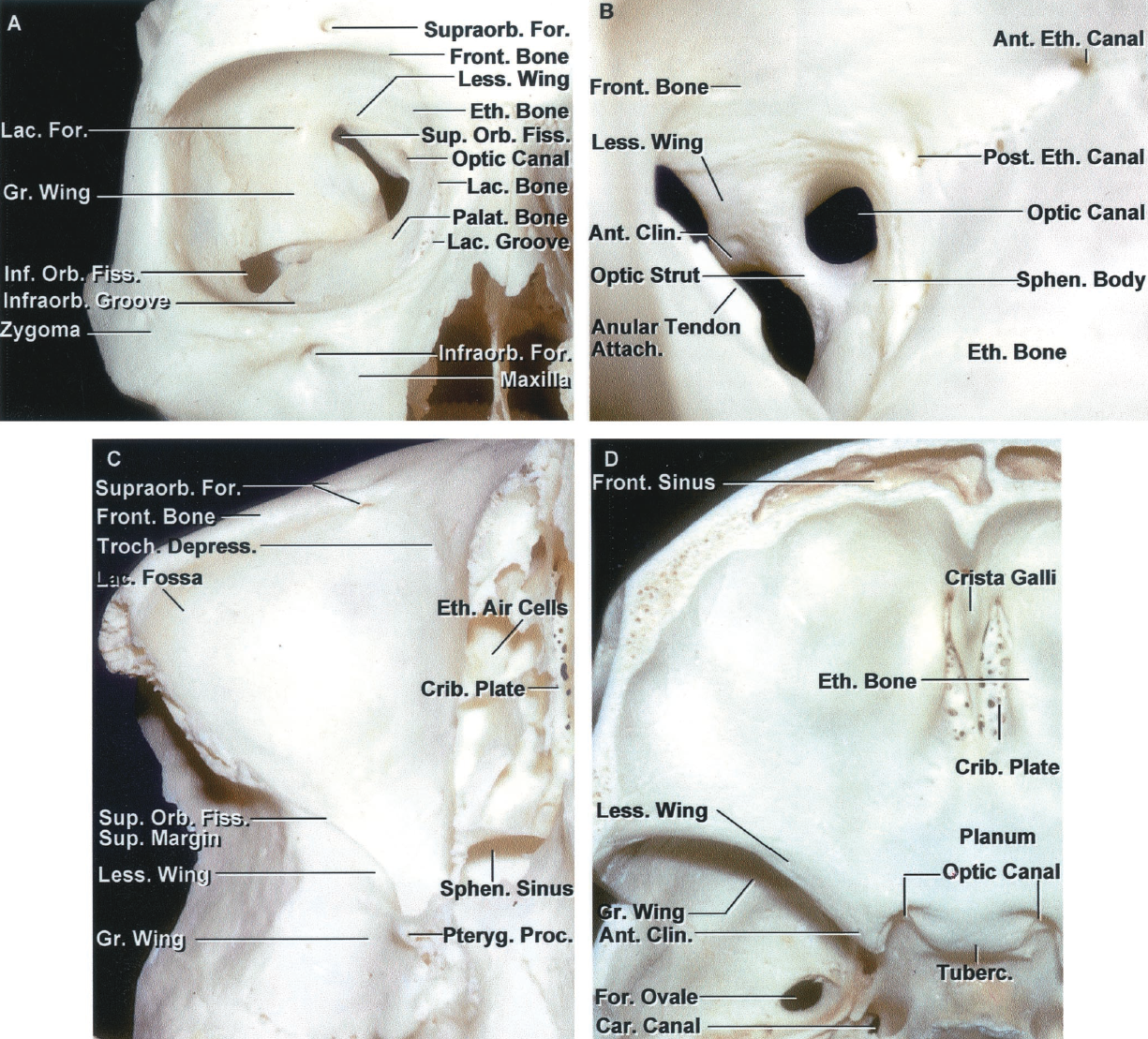 FIGURE 7.1. A-D. Osseous relationships of the orbit. A, anterior view of the right orbit. The walls of the orbit are formed by seven bones. They are the frontal, zygomatic, sphenoid, lacrimal, ethmoid, and palatine bones, and the maxilla. The lateral border of the orbital opening is formed by the frontal process of the zygoma, except the upper part, which is formed by the zygomatic process of the frontal bone. The lower margin of the orbital opening is formed laterally by the zygoma and medially by the maxilla. The upper part of the medial border is formed by the frontal bone and the lower part is formed by the frontal process of the maxilla. The medial part of the upper border contains the frontal sinus. The superior orbital fissure is bounded above by the lesser wing of the sphenoid bone, below by the greater wing, and medially by the sphenoid body. The frontal bone forms the narrow lateral apex of the superior orbital fissure. The inferior orbital fissure is bounded posteriorly by the greater sphenoid wing and anteriorly by the maxilla. The supraorbital margin is notched or is the site of one or several small foramina that transmit the supraorbital nerves and vessels. The infraorbital groove, which transmits the infraorbital branch of the maxillary nerve, leads forward out of the inferior orbital fissure to cross the floor to reach the infraorbital canal, which ends in the infraorbital foramen. B, anterior aspect of the right optic canal. The optic canal, which transmits the optic nerve and ophthalmic artery, opens into the superomedial corner of the orbital apex. The optic canal is situated at the junction of the lesser wing with the sphenoid body. It is separated from the superior orbital fissure by the optic strut, a bridge of bone, which extends from the lower margin of the anterior clinoid to the sphenoid body. The optic strut is also referred to as the posterior root of the lesser wing. The tendinous ring, referred to as the annular tendon, from which the f
