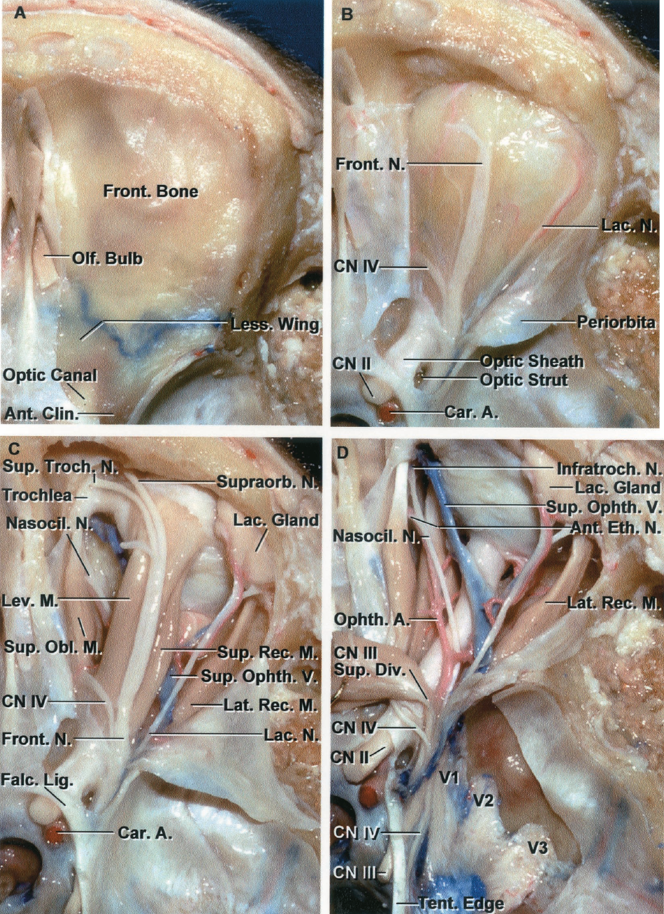FIGURE 7.2. A-D. Superior view of a stepwise dissection of the neural structures in the orbit and superior orbital fissure. A, the dura has been removed from the part of the frontal and sphenoid bones forming the orbital roof. The olfactory bulb rests on the cribriform plate. B, the orbit and optic canal have been unroofed, the anterior clinoid process removed, and the periorbita opened to expose the trochlear, frontal, and lacrimal nerves coursing in the orbital fat just beneath the periorbita. The optic strut, which has been partially removed, separates the optic canal and superior orbital fissure. C, the orbital fat has been removed. The ophthalmic nerve divides into the lacrimal, frontal, and nasociliary nerves. The frontal nerve passes through the superior orbital fissure and courses on the levator muscle where it divides into a supratrochlear nerve, which passes above the trochlea of the superior oblique muscle, and the supraorbital nerve, which passes through a foramen or notch in the supraorbital margin. The lacrimal nerve passes above the lateral rectus muscle to innervate the lacrimal gland and convey sensation to the area around the lateral part of the supraorbital margin. The trochlear nerve passes medially above the levator muscle to reach the superior oblique muscle. The nasociliary branch of the ophthalmic nerve passes between the superior rectus muscle and the optic nerve to reach the medial side of the orbit. The tendon of the superior oblique muscle passes through the trochlea and below the superior rectus muscle to insert on the globe between the attachment of the superior and lateral rectus muscles. D, the frontal nerve and the levator and superior rectus muscles have been divided and reflected. This exposes the superior ophthalmic vein, ophthalmic artery, and nasociliary nerve as they pass above the optic nerve. The dura lining the middle cranial fossa has been removed to expose the oculomotor, trochlear, and ophthalmic nerves as they course in 